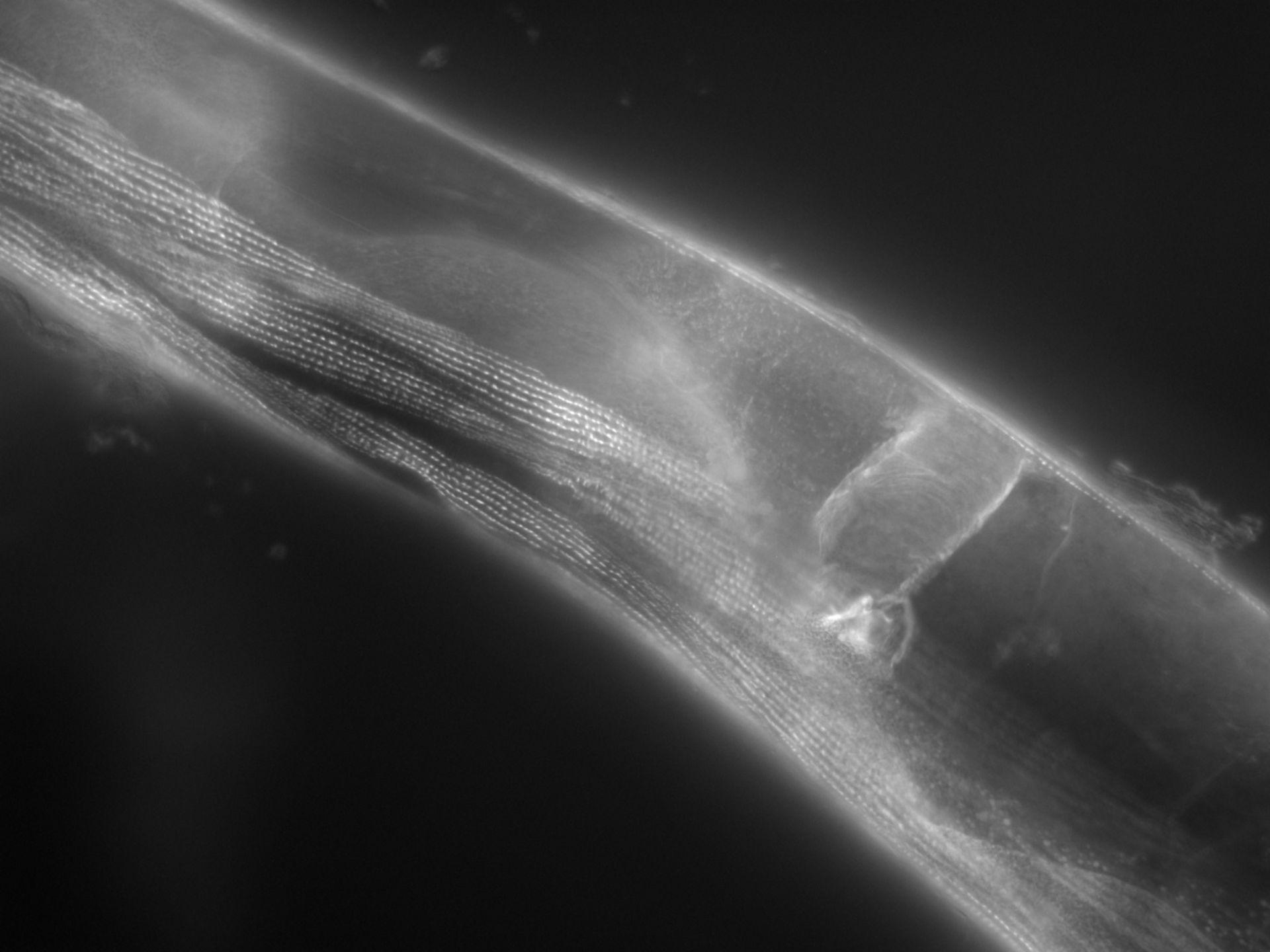 Caenorhabditis elegans (Actin filament) - CIL:1145