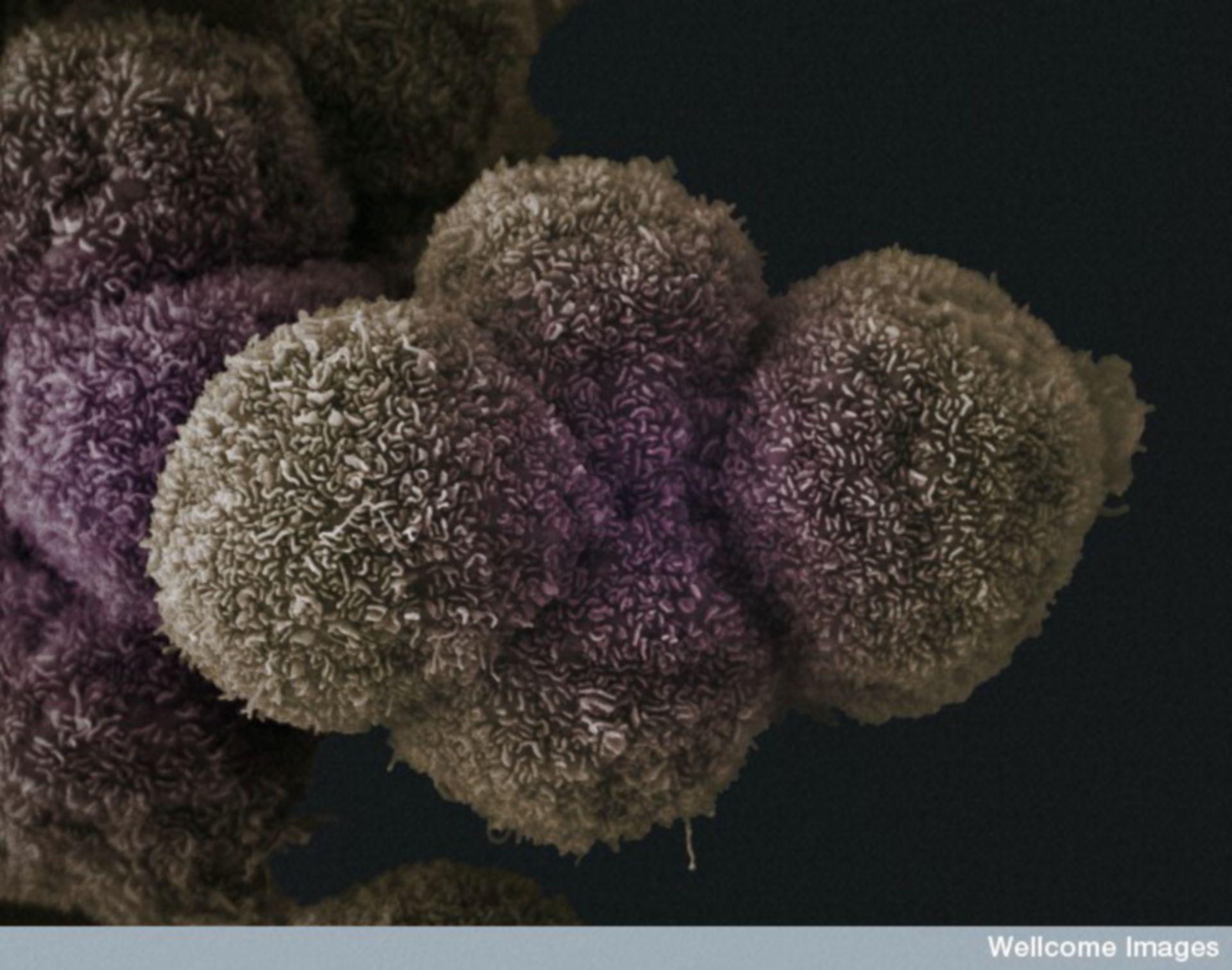 The Cell - Bild der Woche (06.04.2015) / Krebszellen