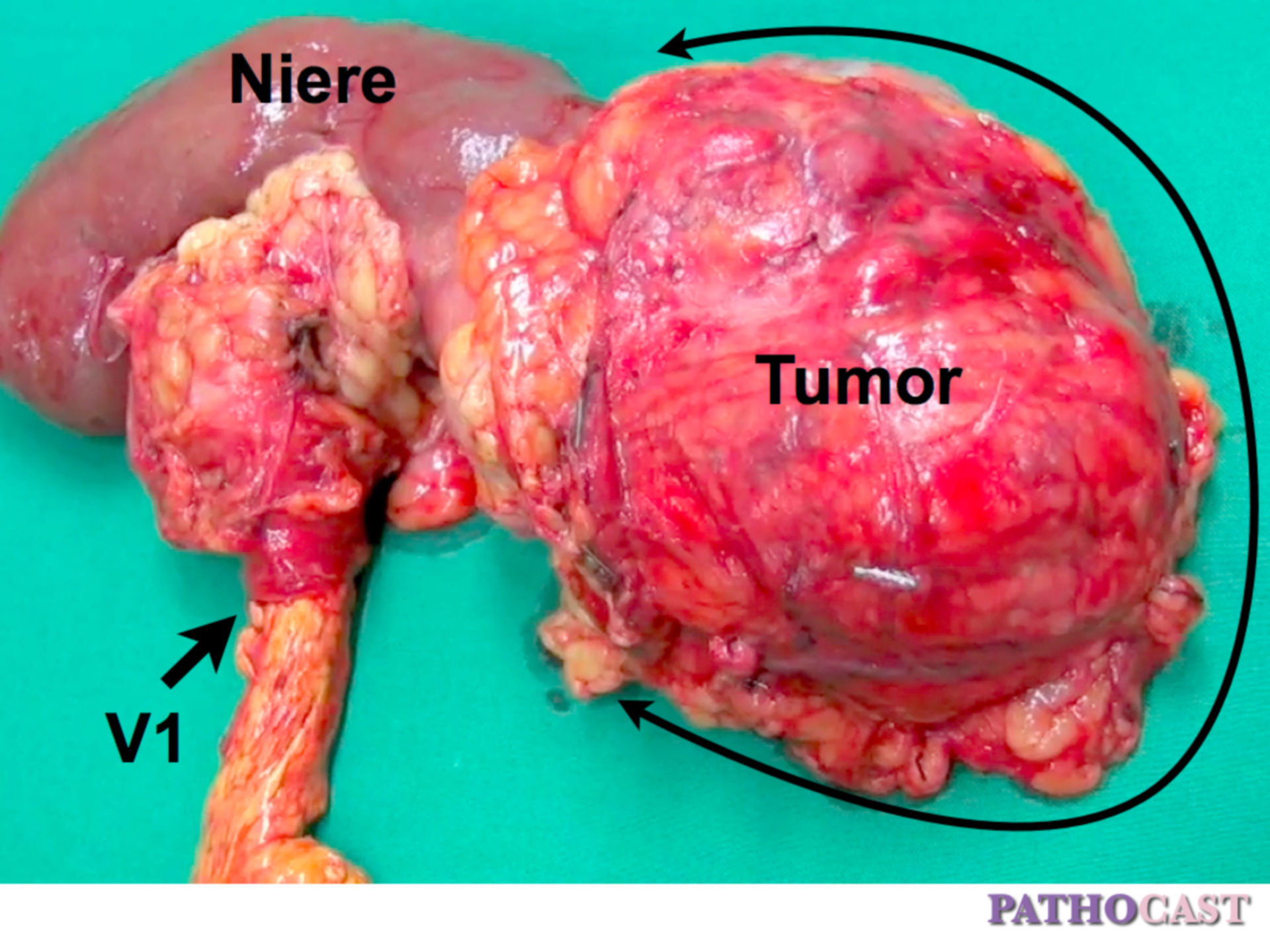 Clear Cell Renal Cell Carcinoma