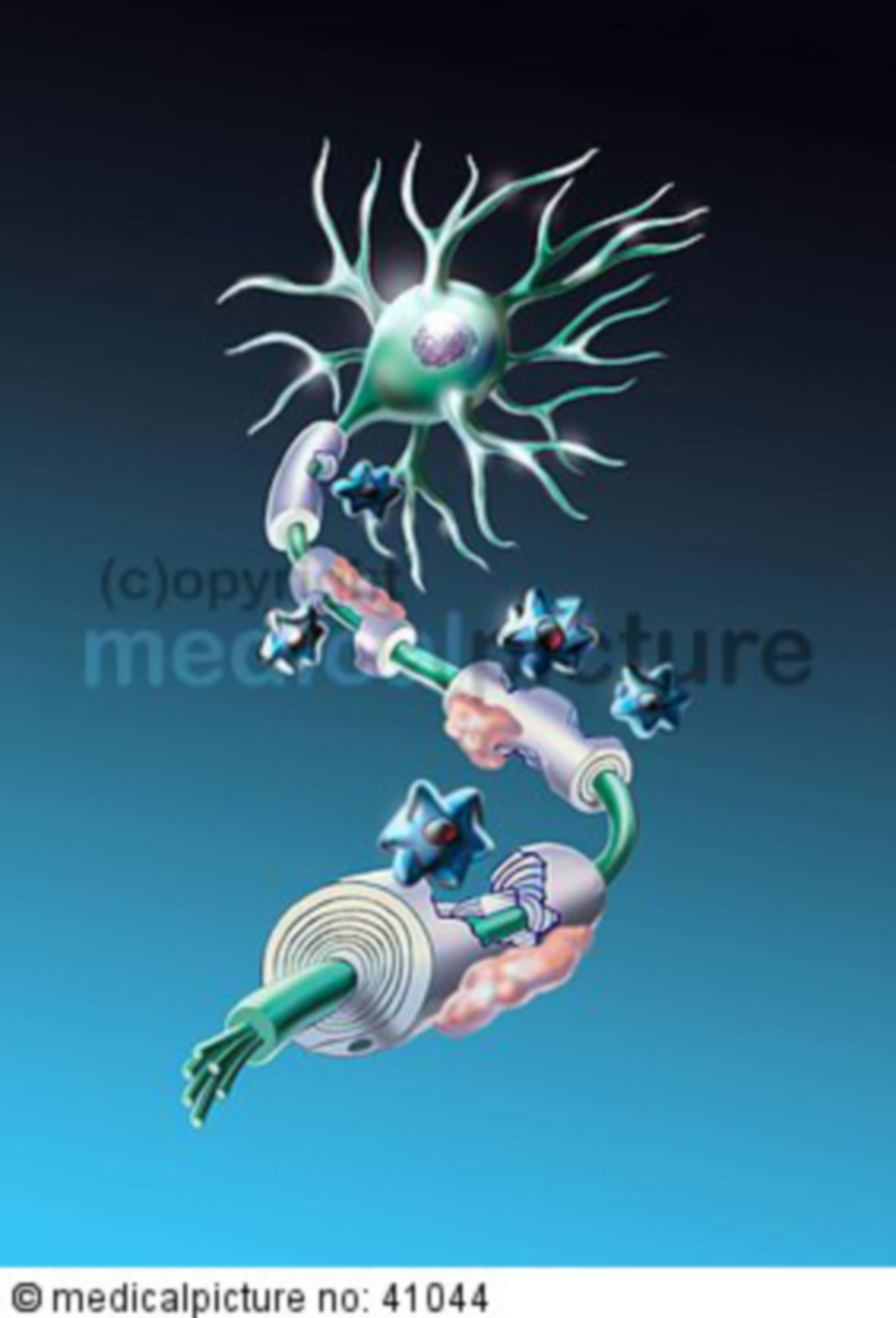 Damage of myelin sheaths due to multiple sclerosis (MS)