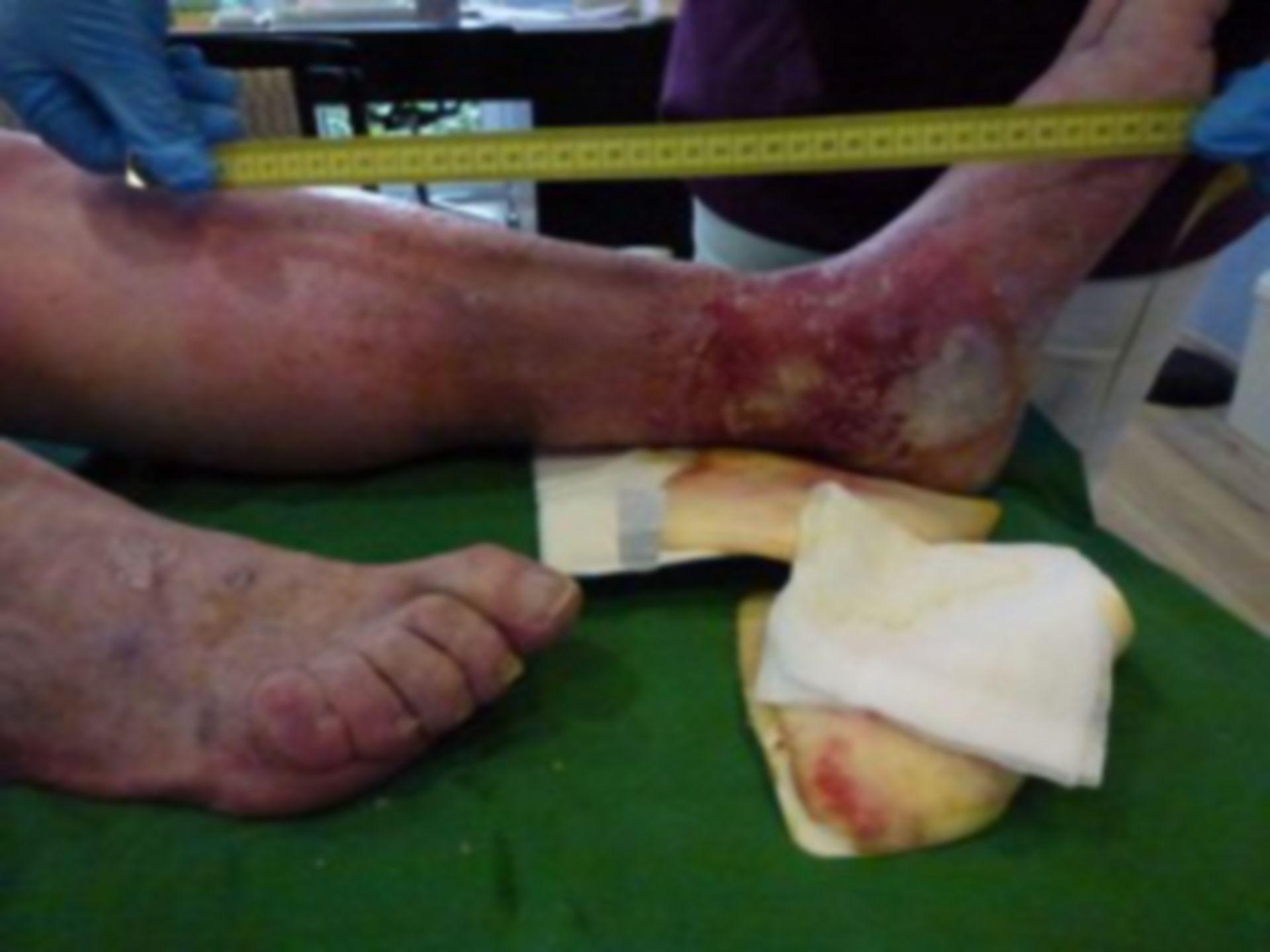 Úlcera de la pierna - Cerrada dentro de 72 horas (11)