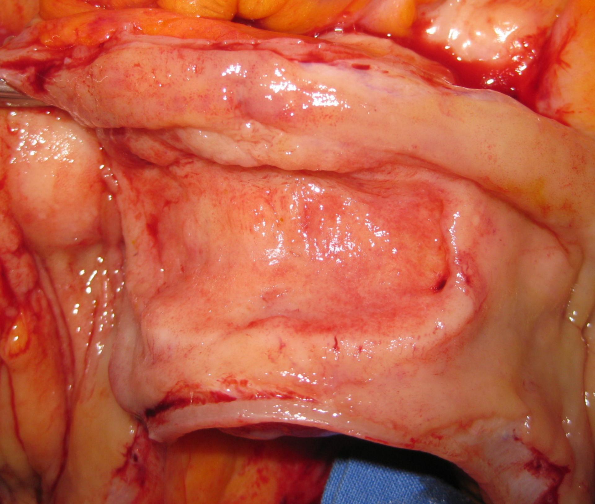 Non-Hodgkin-Lymphom im terminalen Ileum