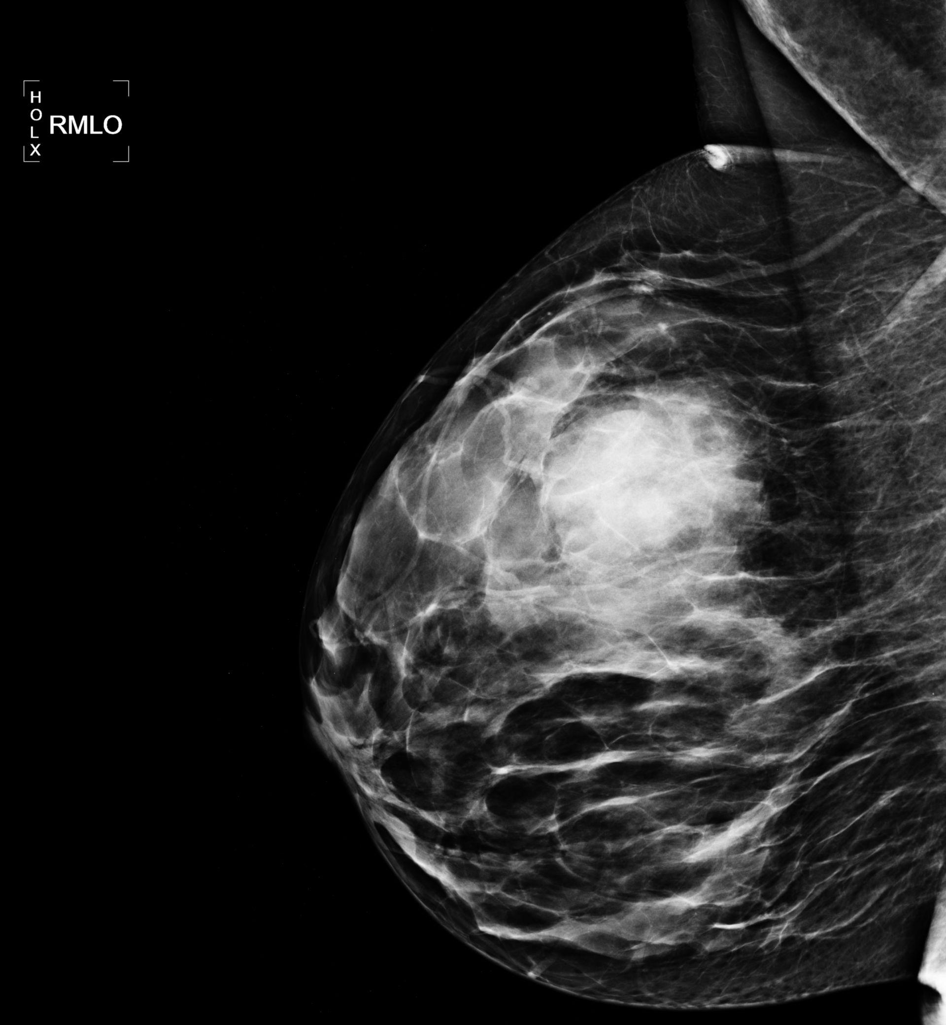 Fibroadenom der Mamma mit Halo-Phänomen (Röntgen)