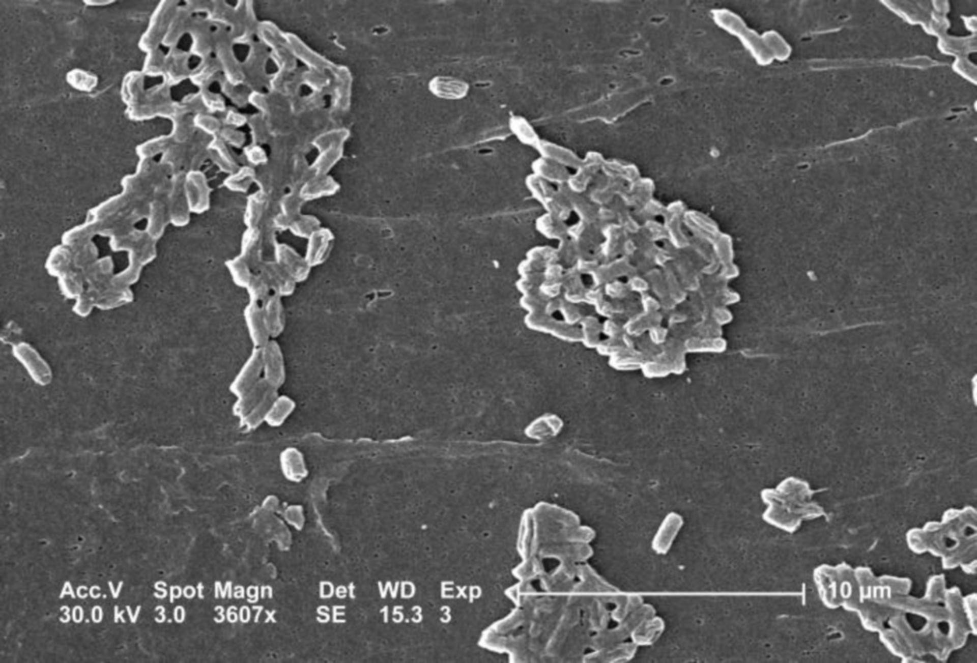Escherichia coli batterio