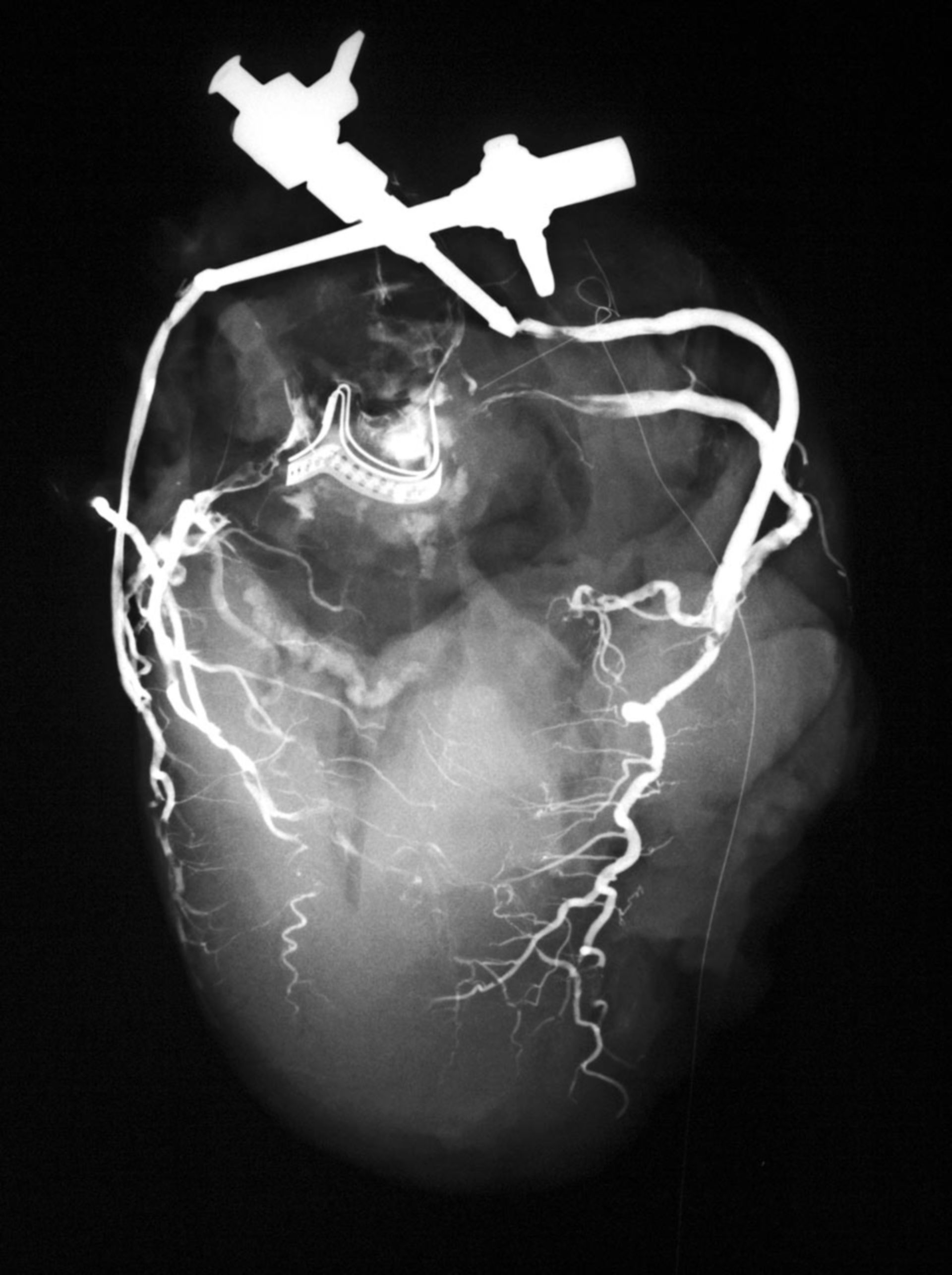 Künstliche Aortenklappe