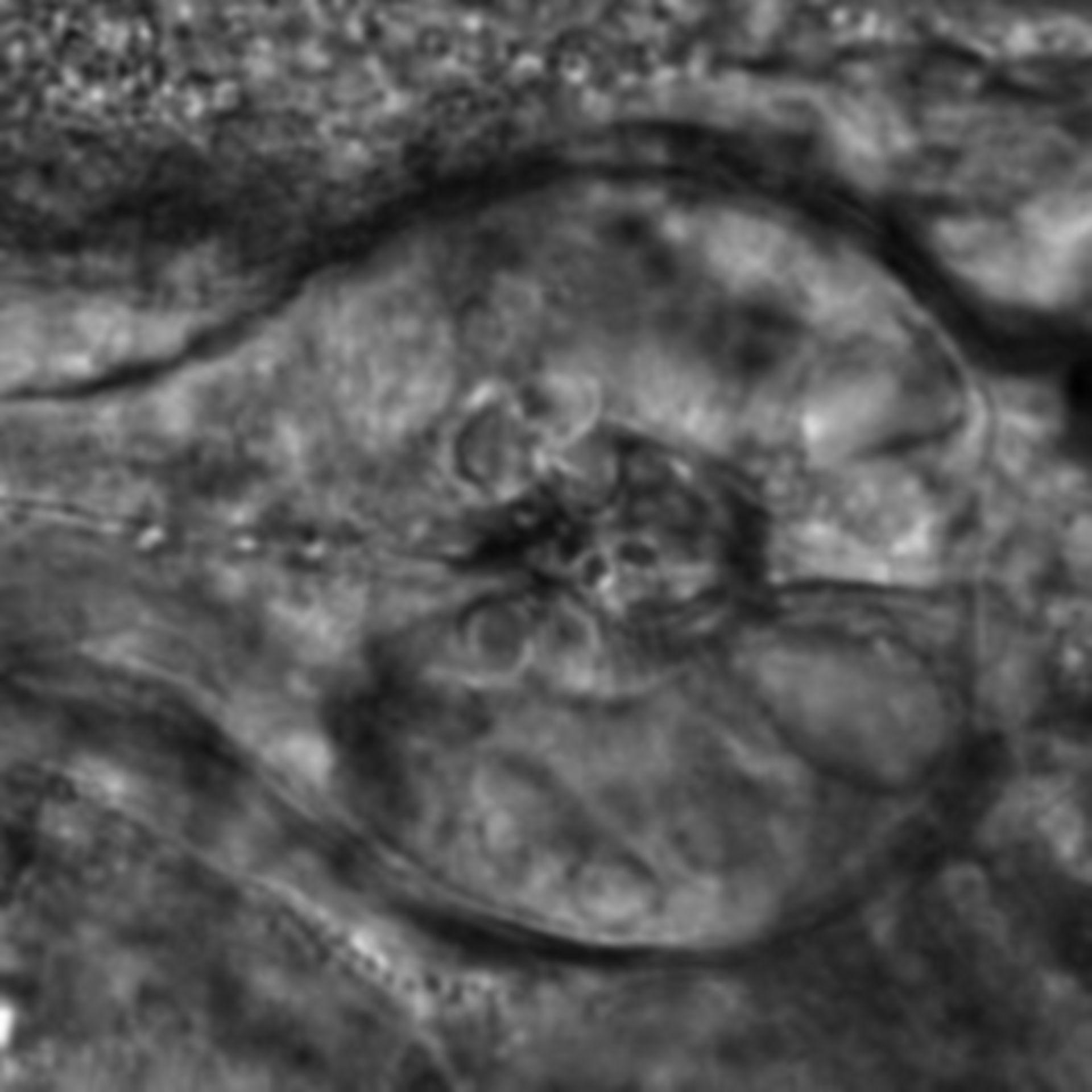 Caenorhabditis elegans - CIL:2752