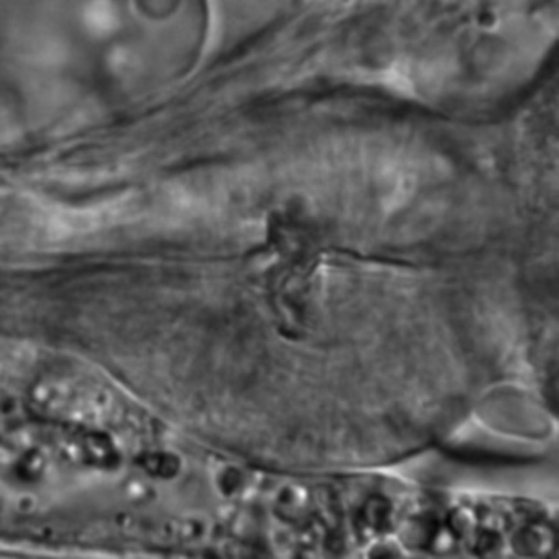 Caenorhabditis elegans - CIL:1703