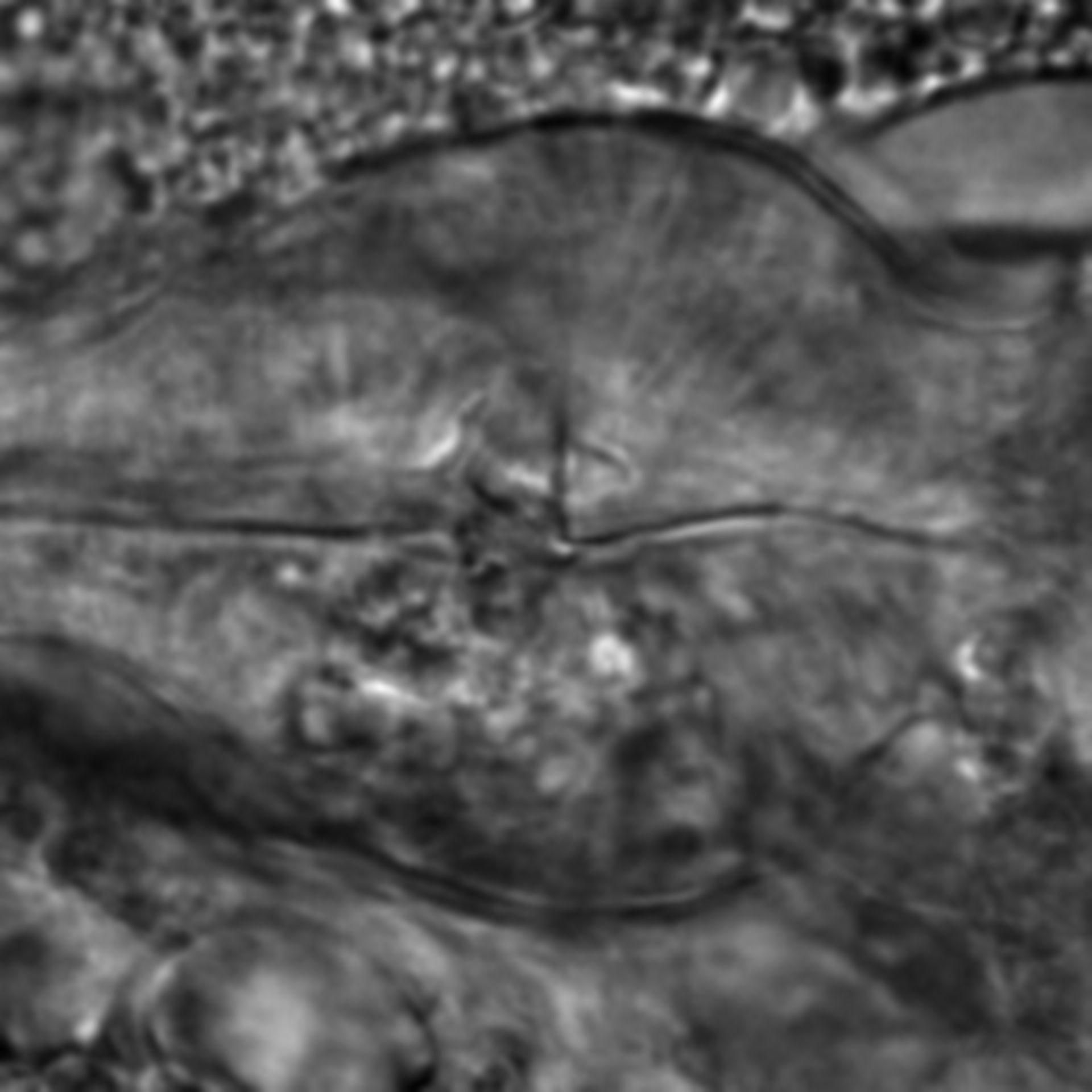 Caenorhabditis elegans - CIL:2178