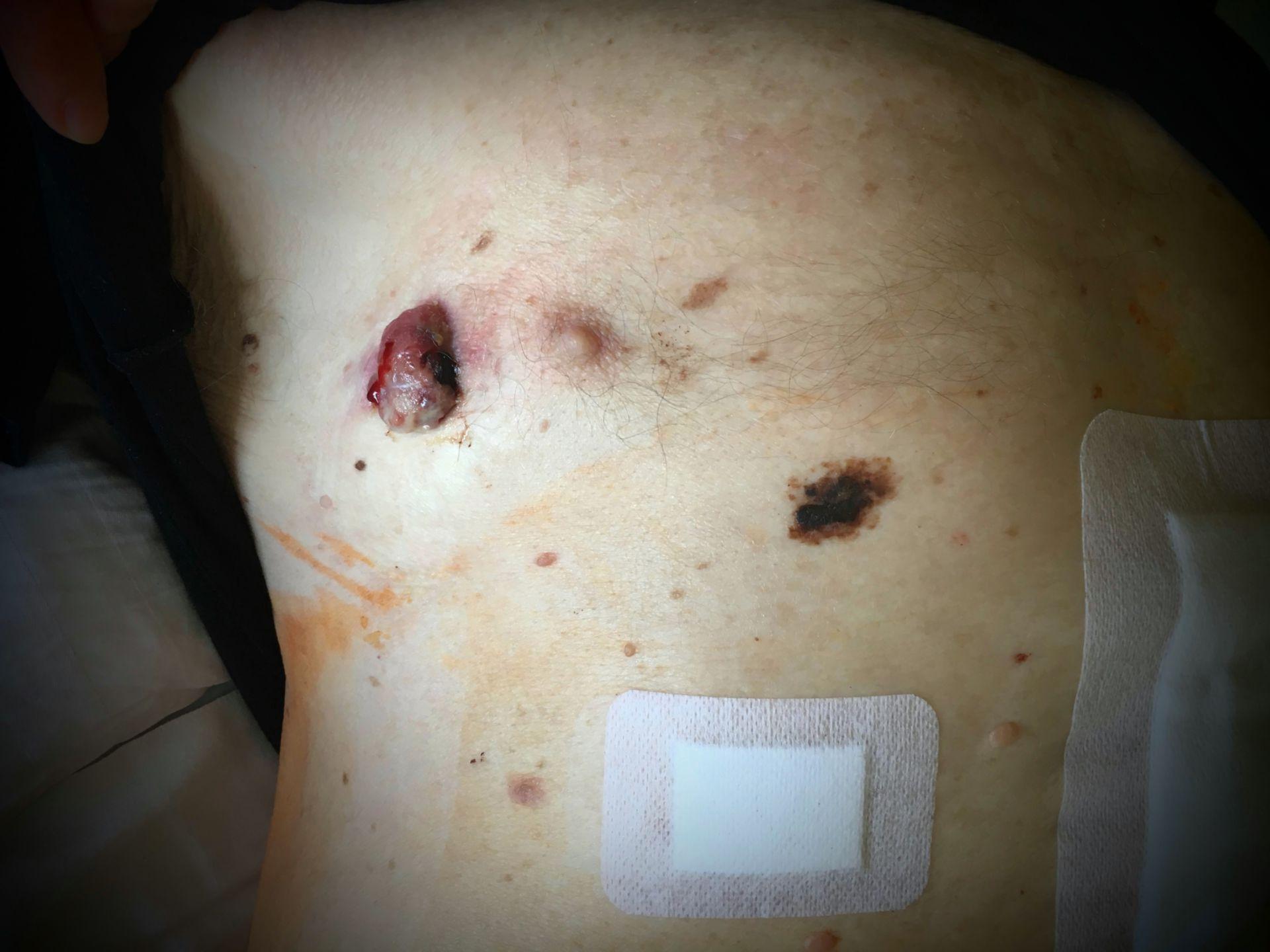 Malign melanoma with skin metastasis