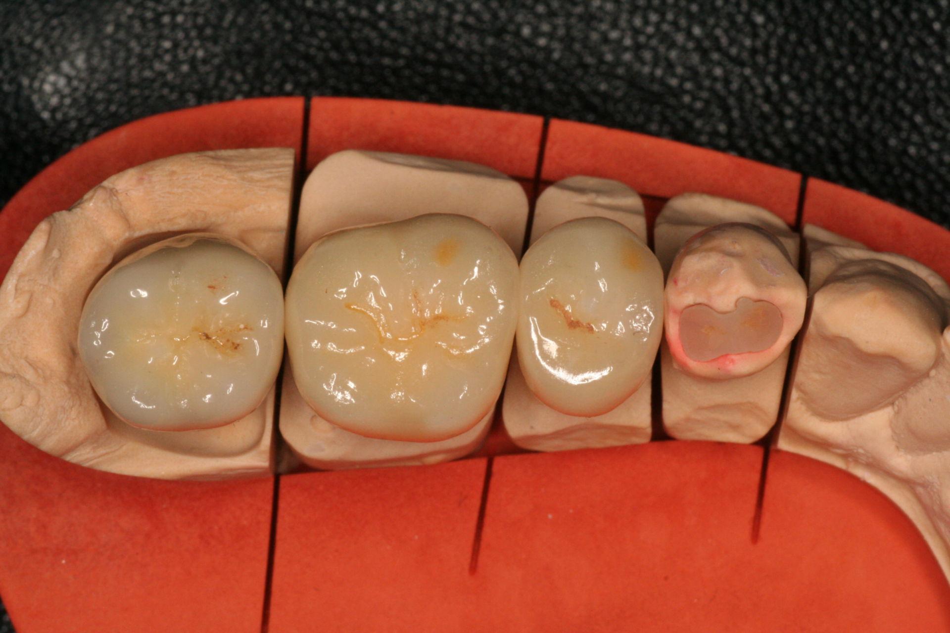 Teeth (prothesis)