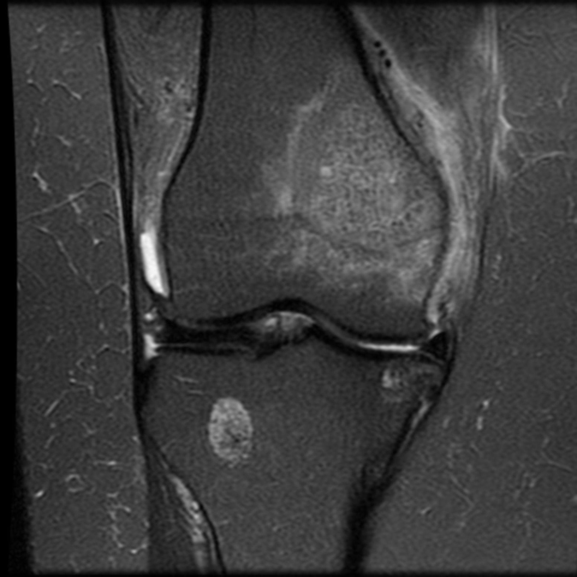 Brustkrebs-Metastase im Femur (MRT)