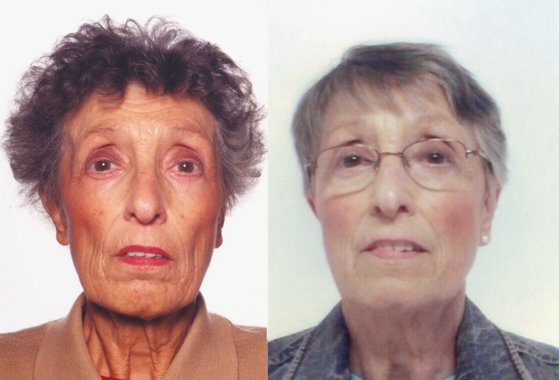 A 69-Year-Old Female with Tiredness and a Persistent Tan