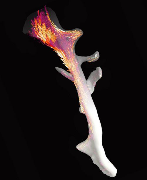 Der Knochen und seine Nanostruktur: Dank ihrer neu entwickelten Auswertungsmethode konnten Forschende am PSI die Ausrichtung der winzigen Kollagenfibrillen kartieren. © Paul Scherrer Institut/Marianne Liebi