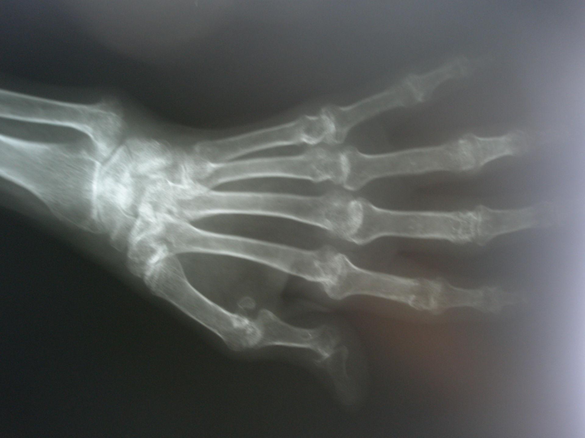 L'artrite reumatoide, Mano Raggi x