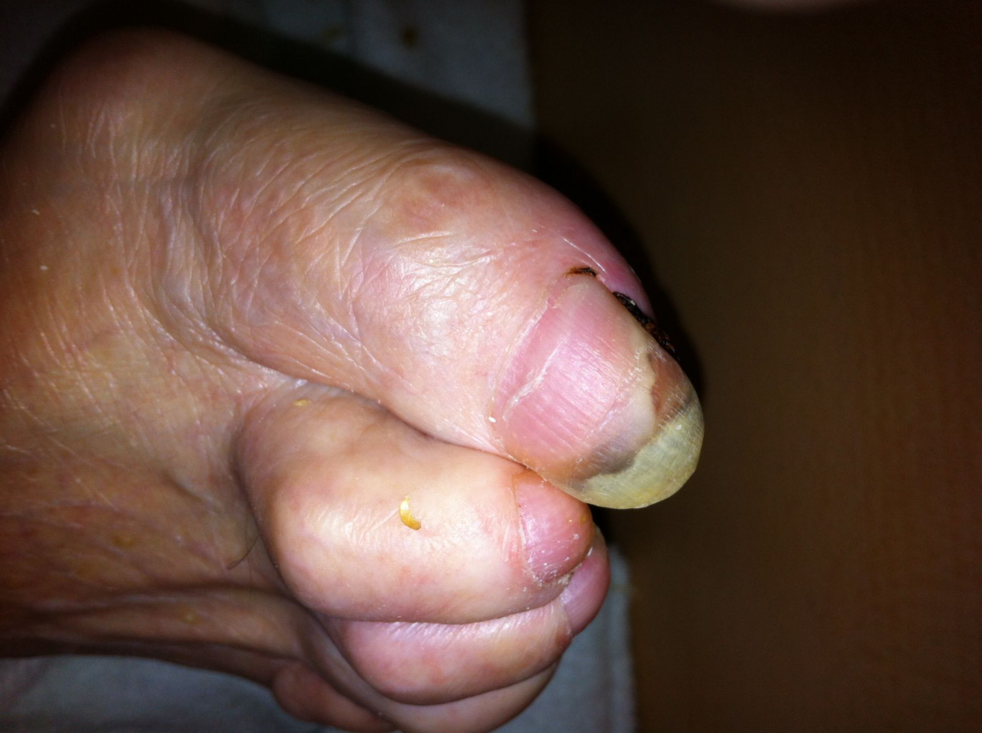 Unguis incarnatus in a patient with diabetic foot syndrome