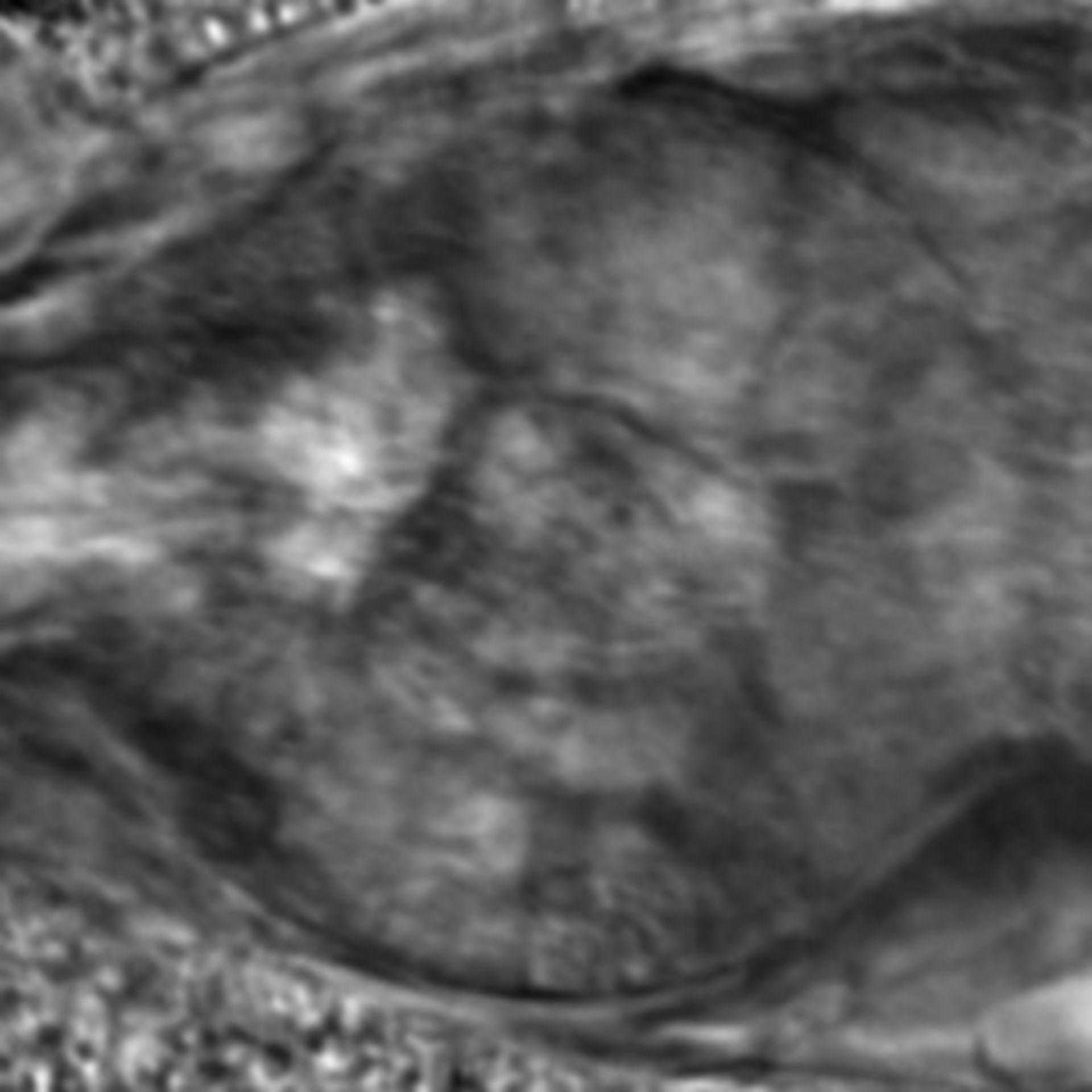 Caenorhabditis elegans - CIL:2671