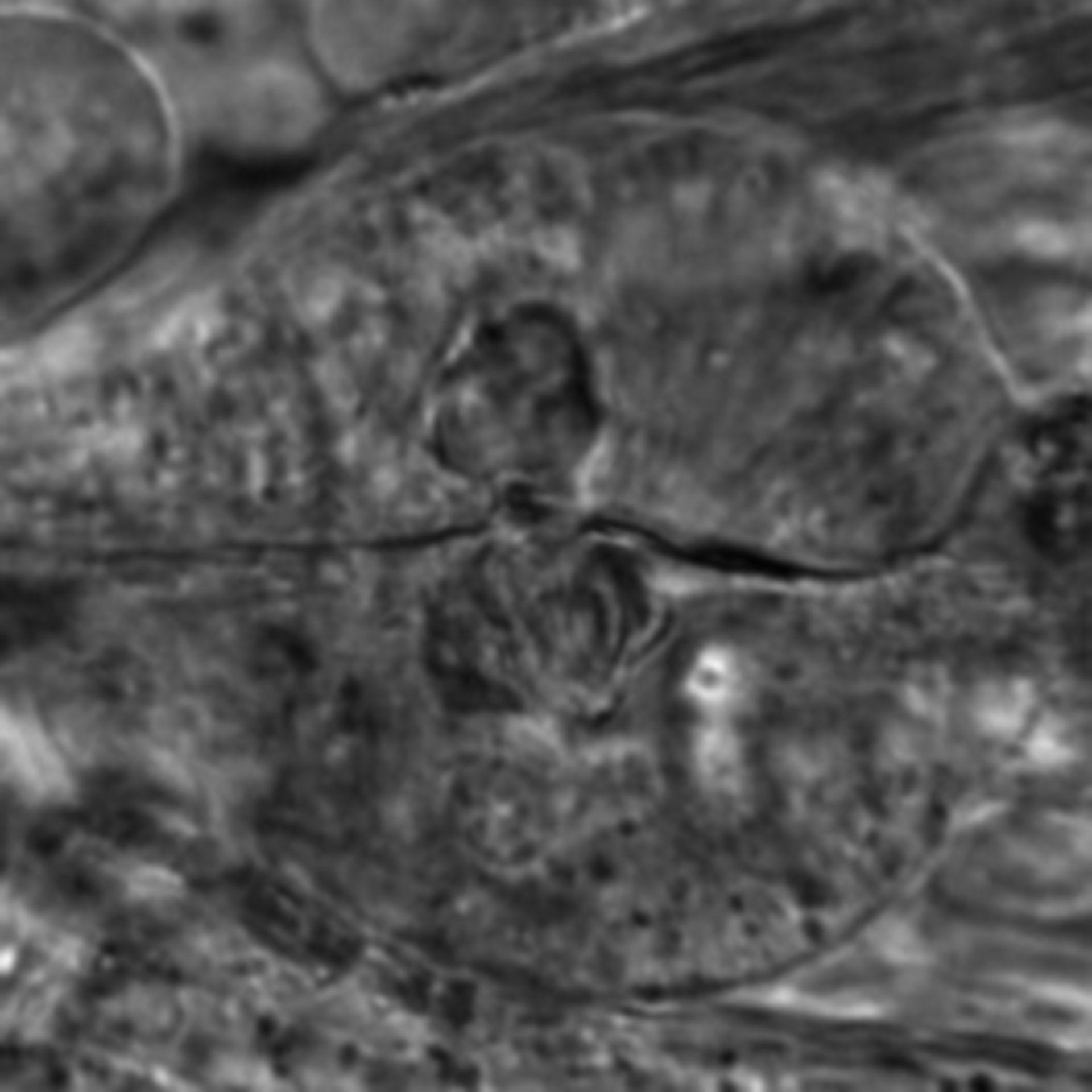 Caenorhabditis elegans - CIL:2635