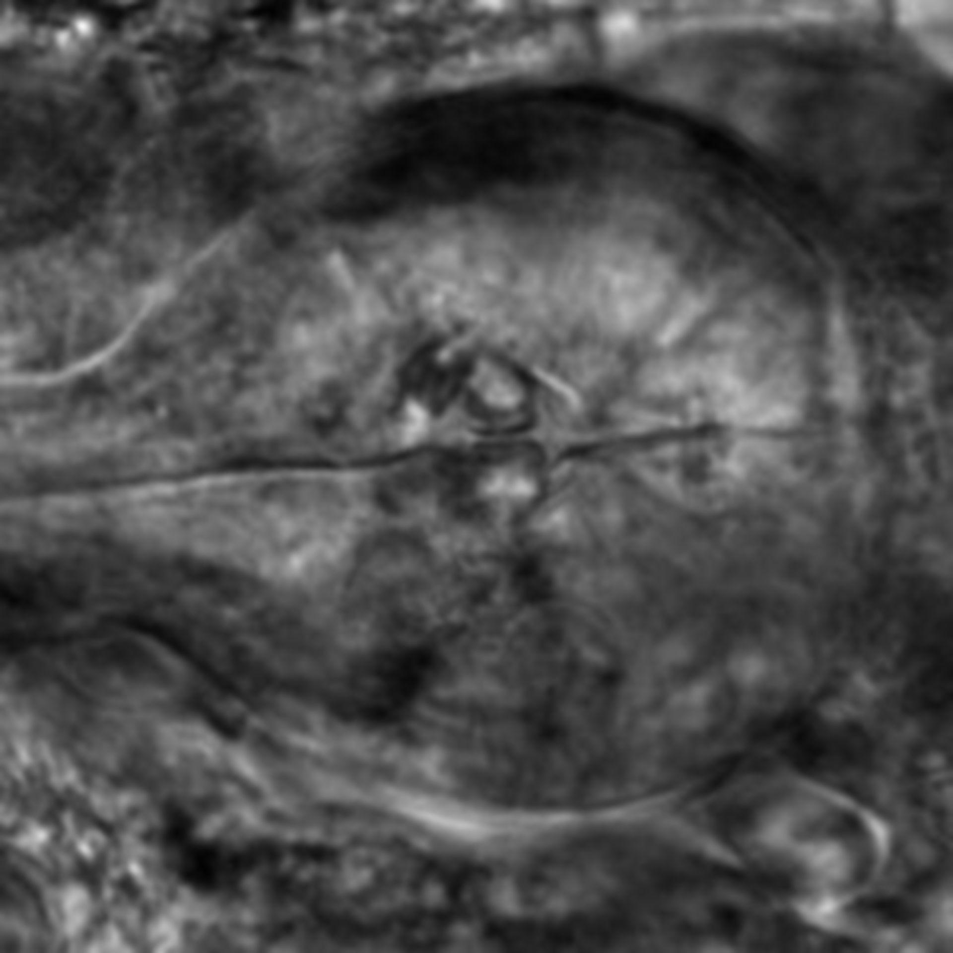 Caenorhabditis elegans - CIL:2309