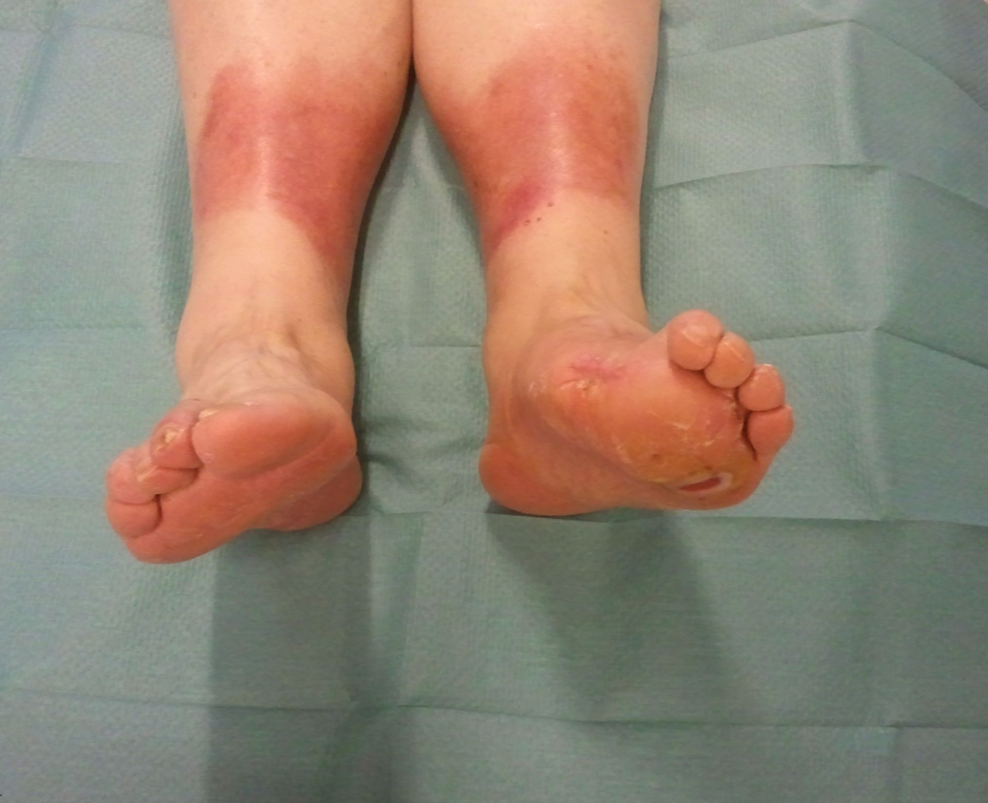 Mal perforans - diabetic foot