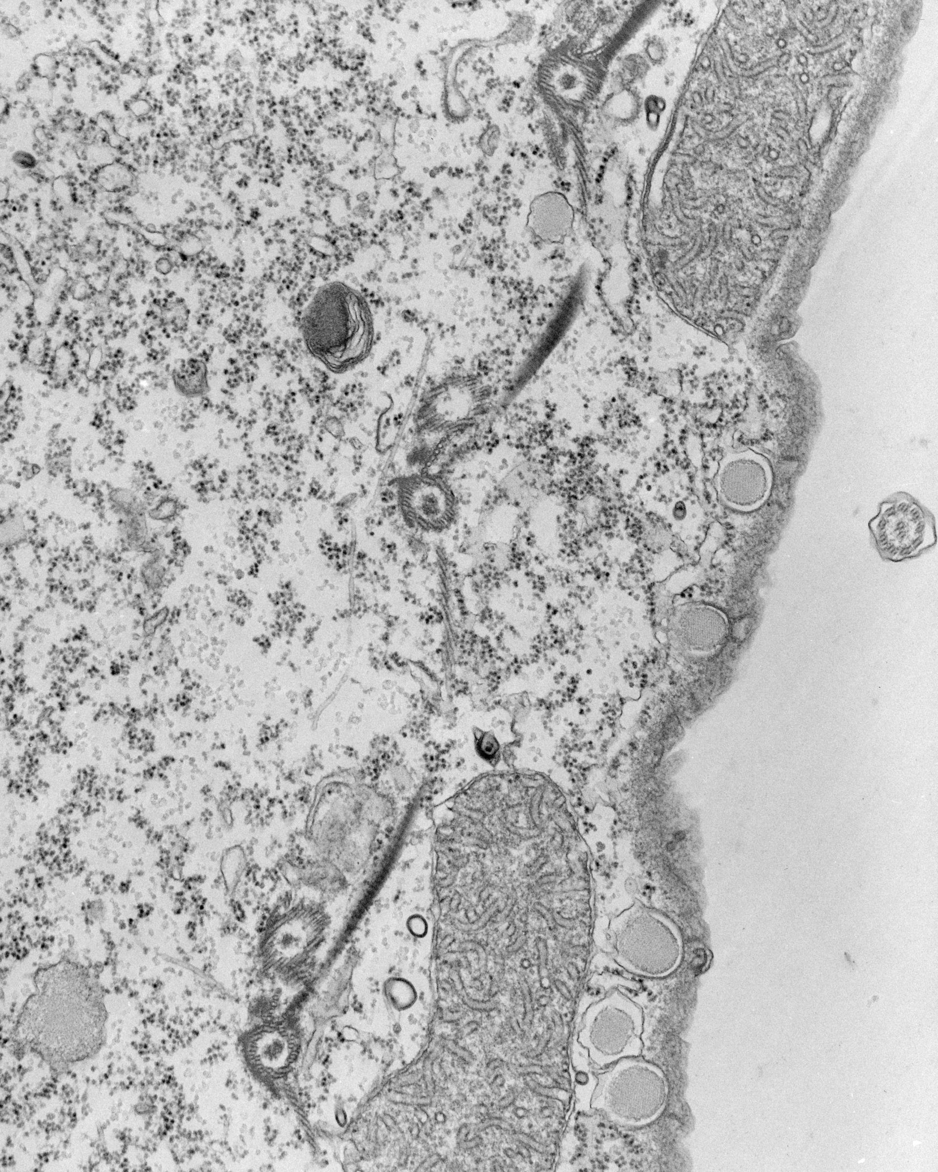 Tetrahymena pyriformis (Fibrille) - CIL:39796