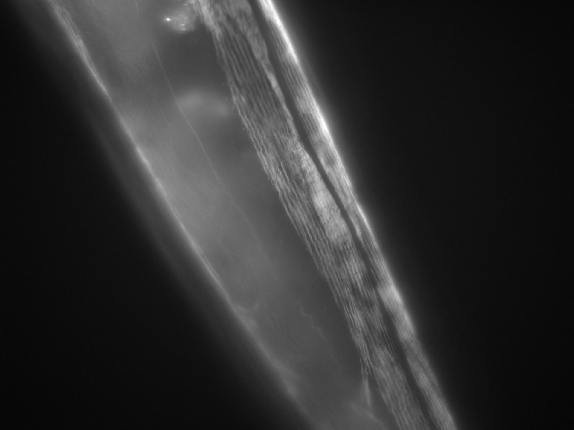 Caenorhabditis elegans (Actin filament) - CIL:1288