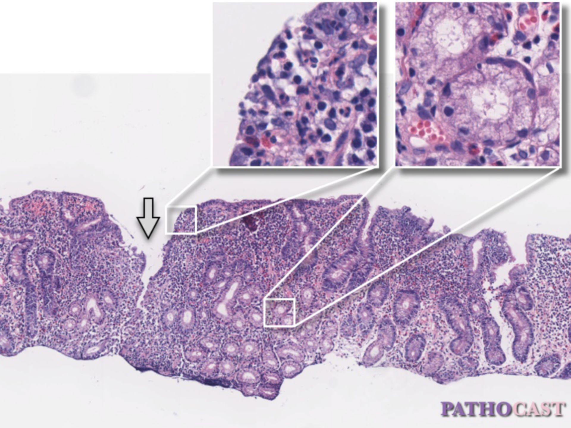 Jejunitis in Crohn's disease