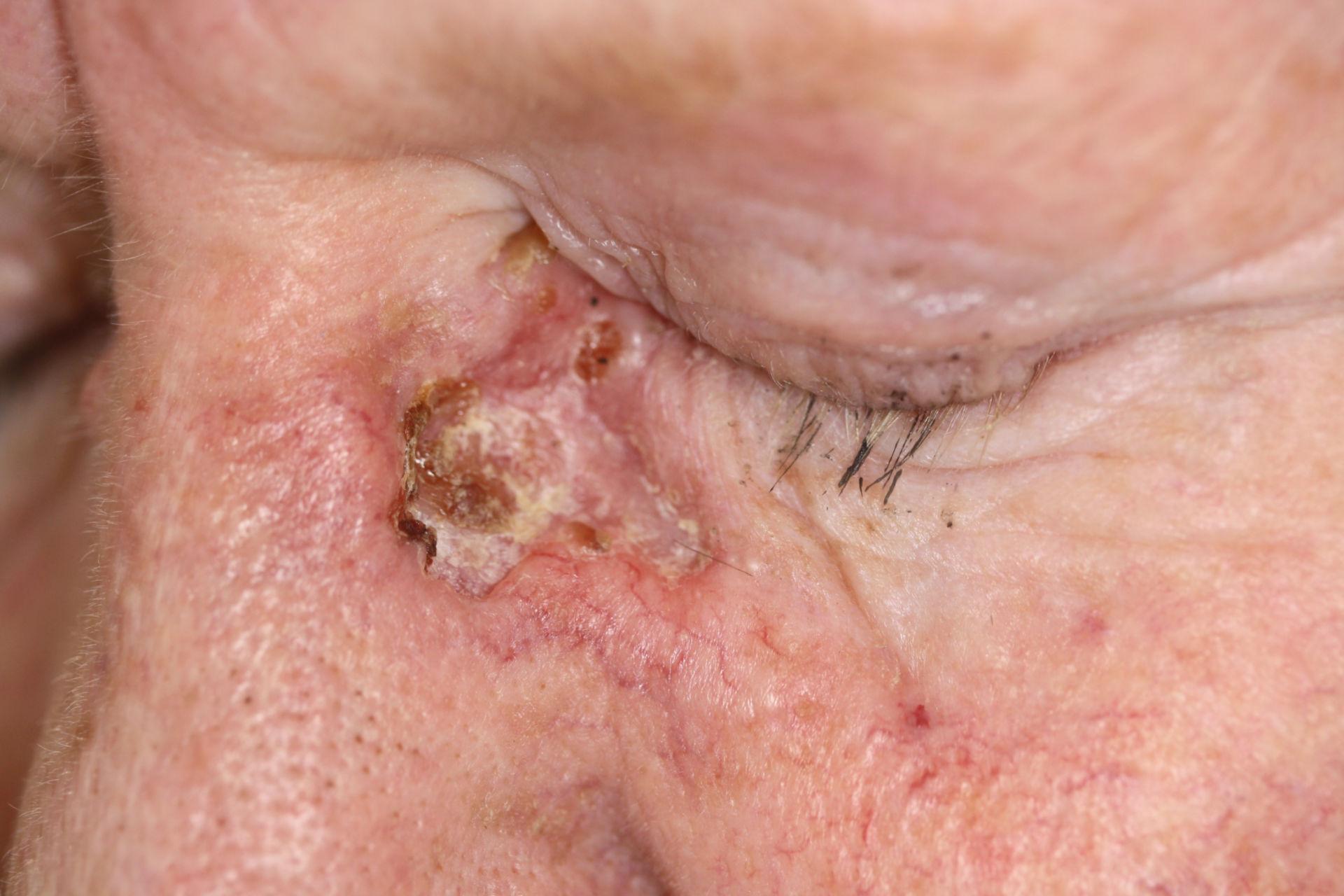 Carcinoma basocelular  -basalioma terebrans