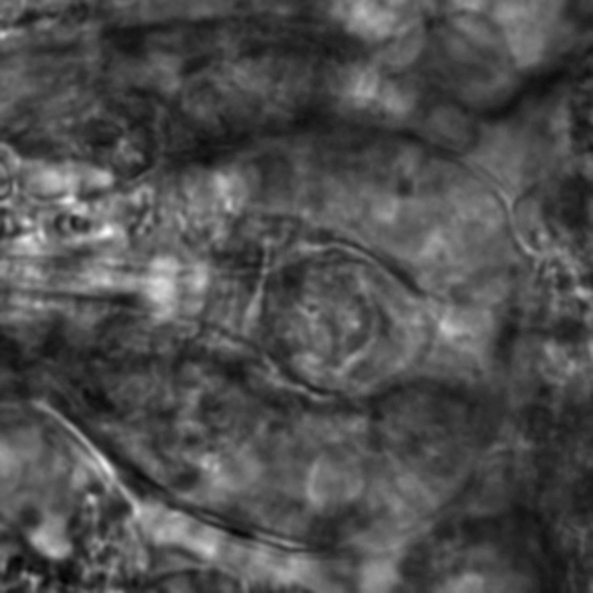 Caenorhabditis elegans - CIL:2746