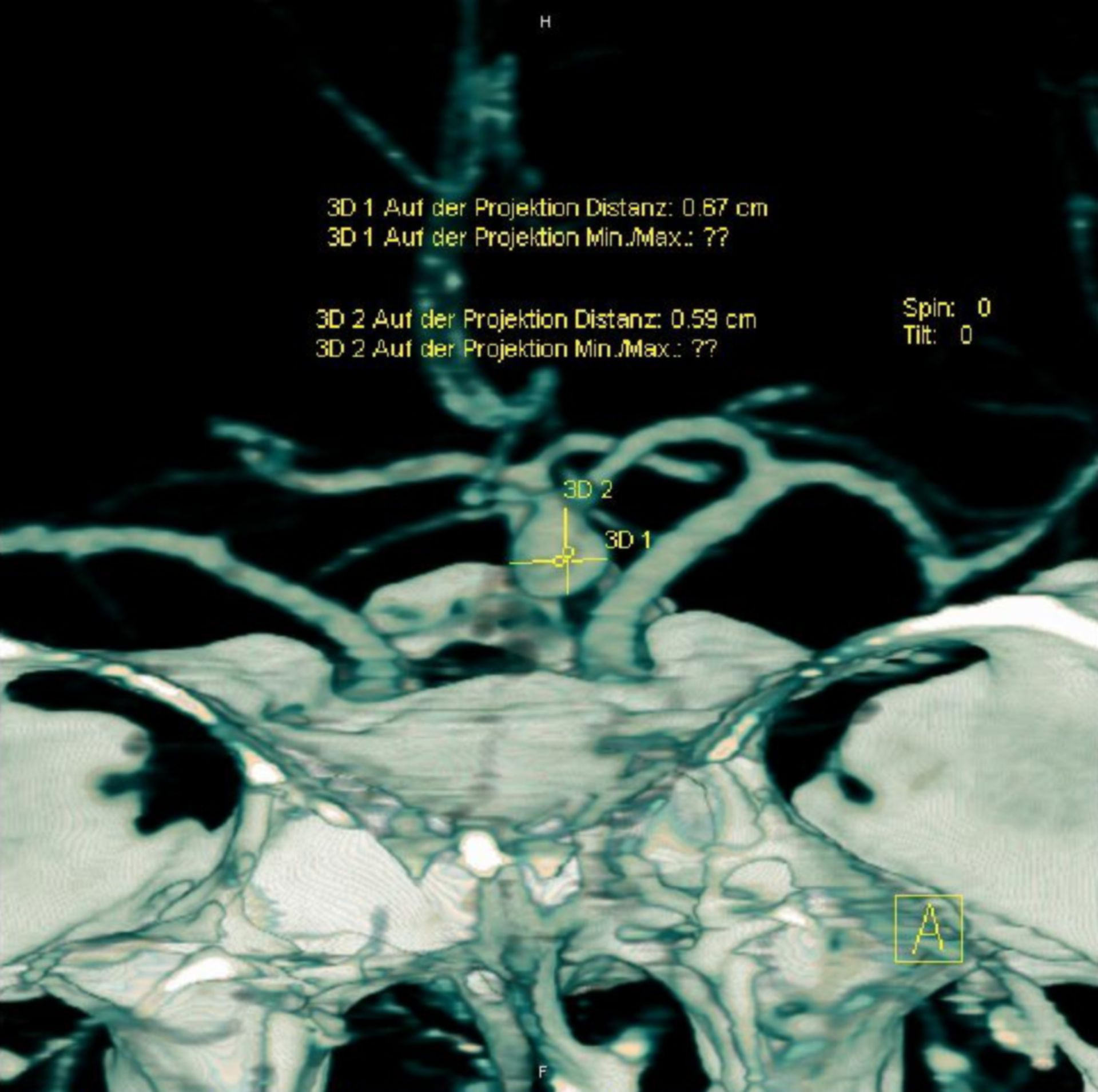 Aneurysma - CT-Angiographie, Messung