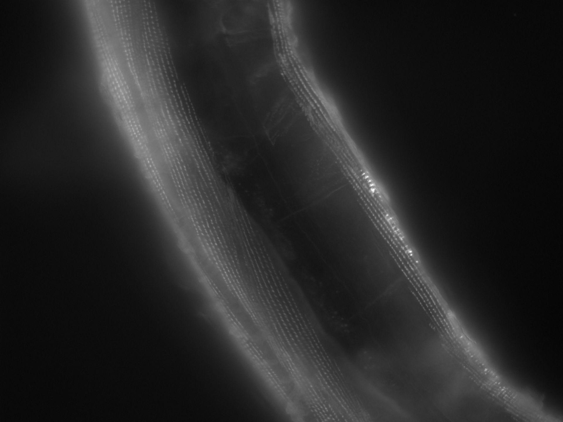 Caenorhabditis elegans (Actin filament) - CIL:1163