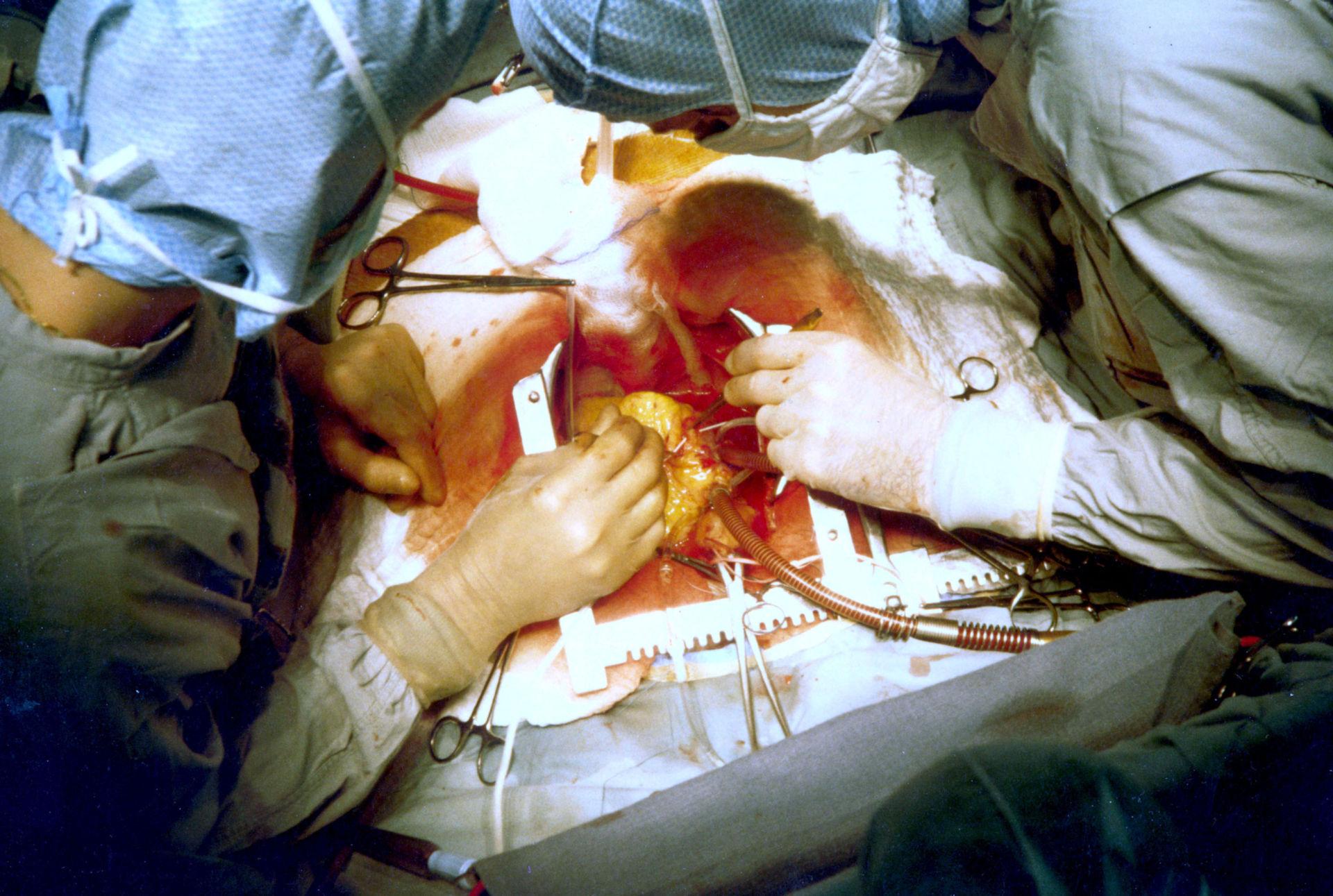 Intervento di bypass coronarico