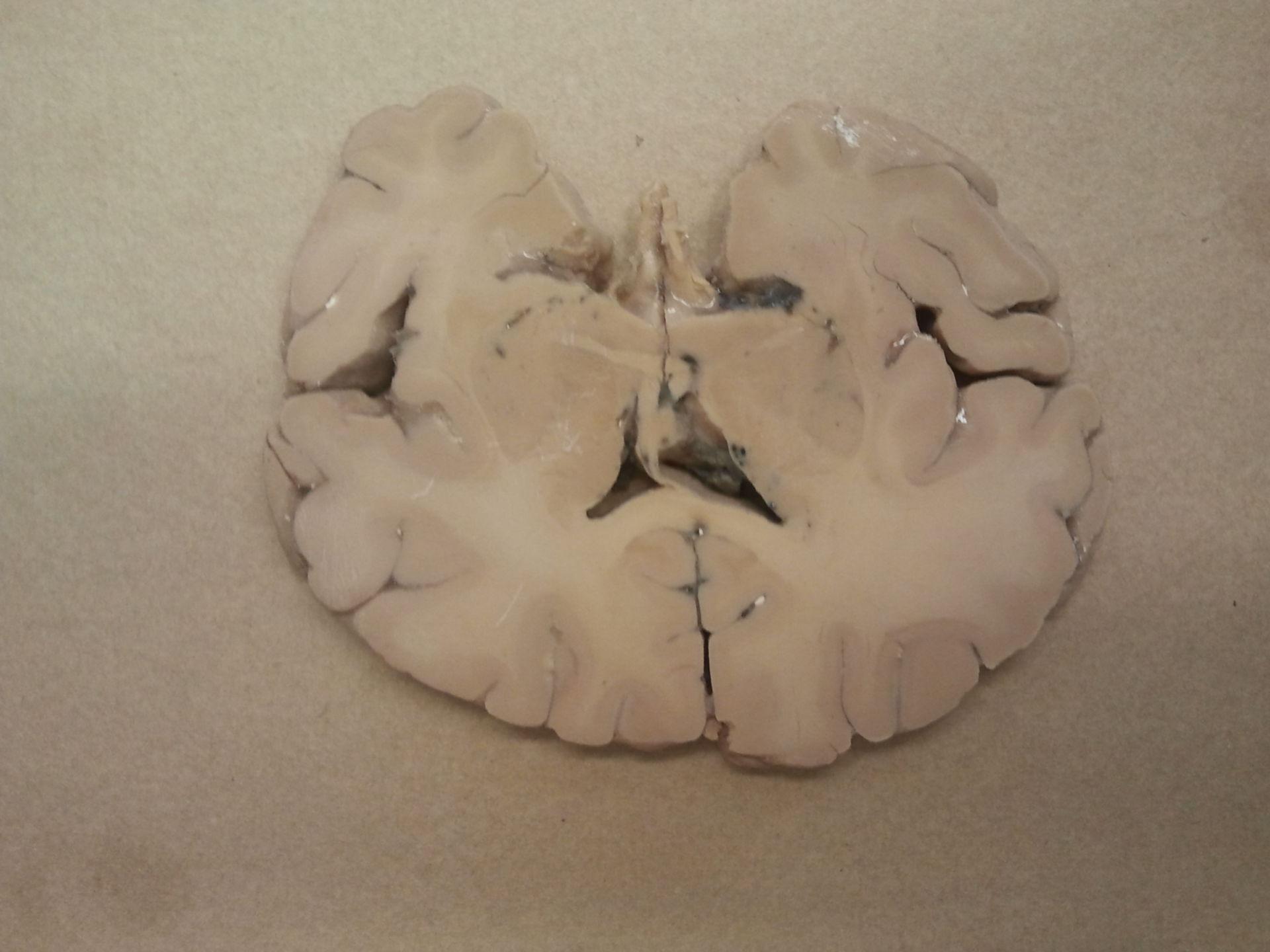 Hirnschnitt mit Ventrikel lateral mit insula Anteil b