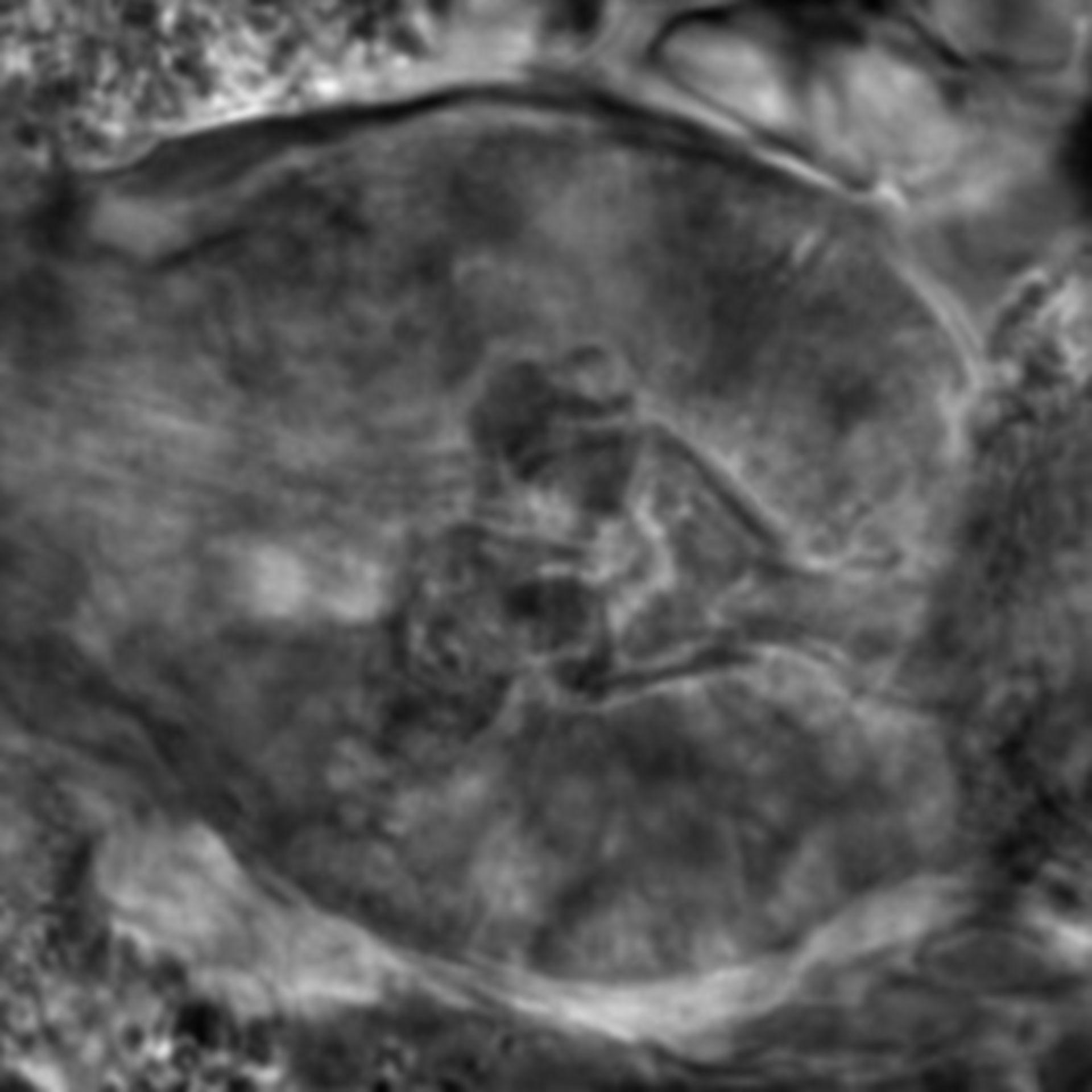 Caenorhabditis elegans - CIL:2680