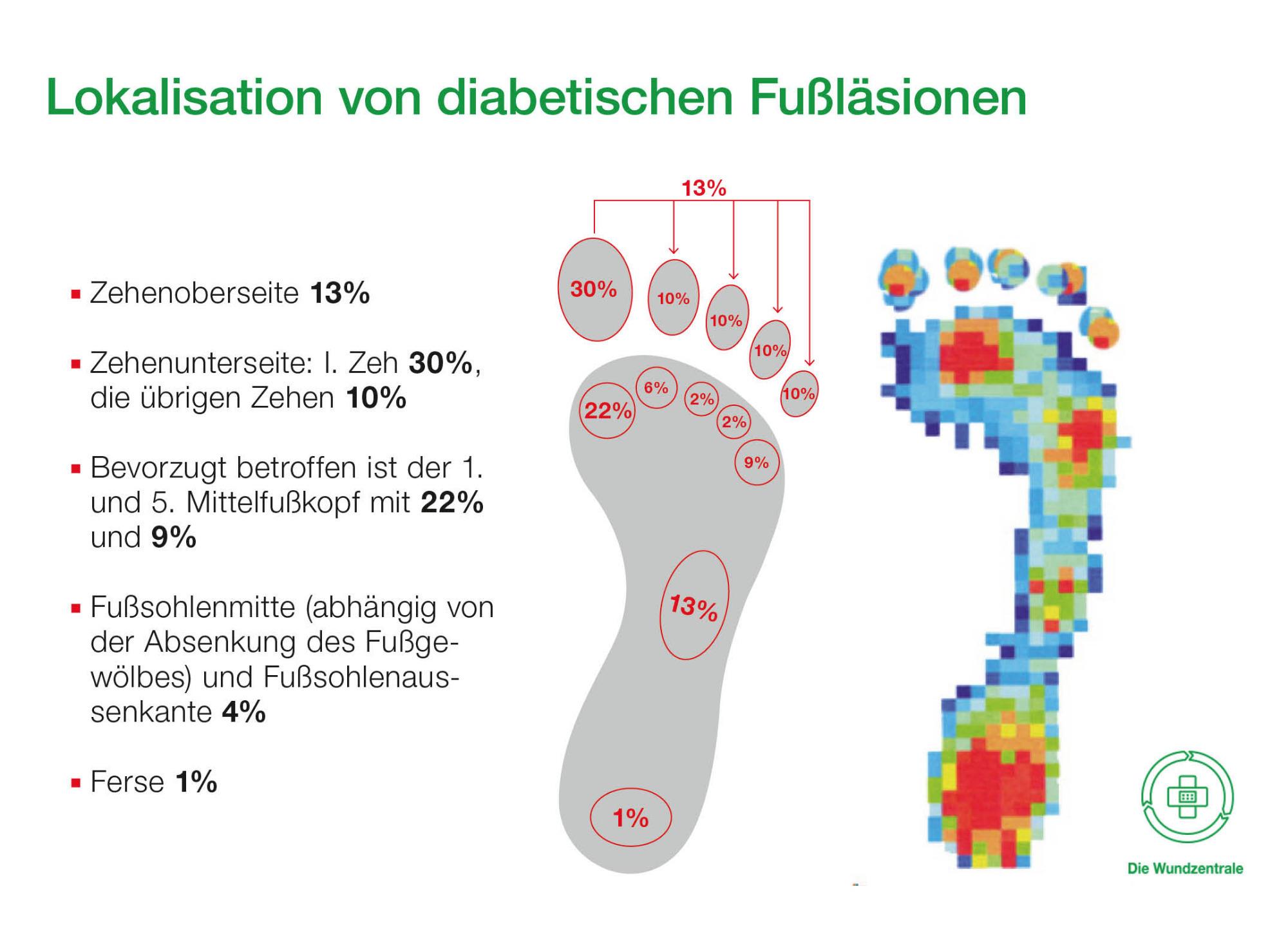 190312_01_diabetische_fusslaesion_origin