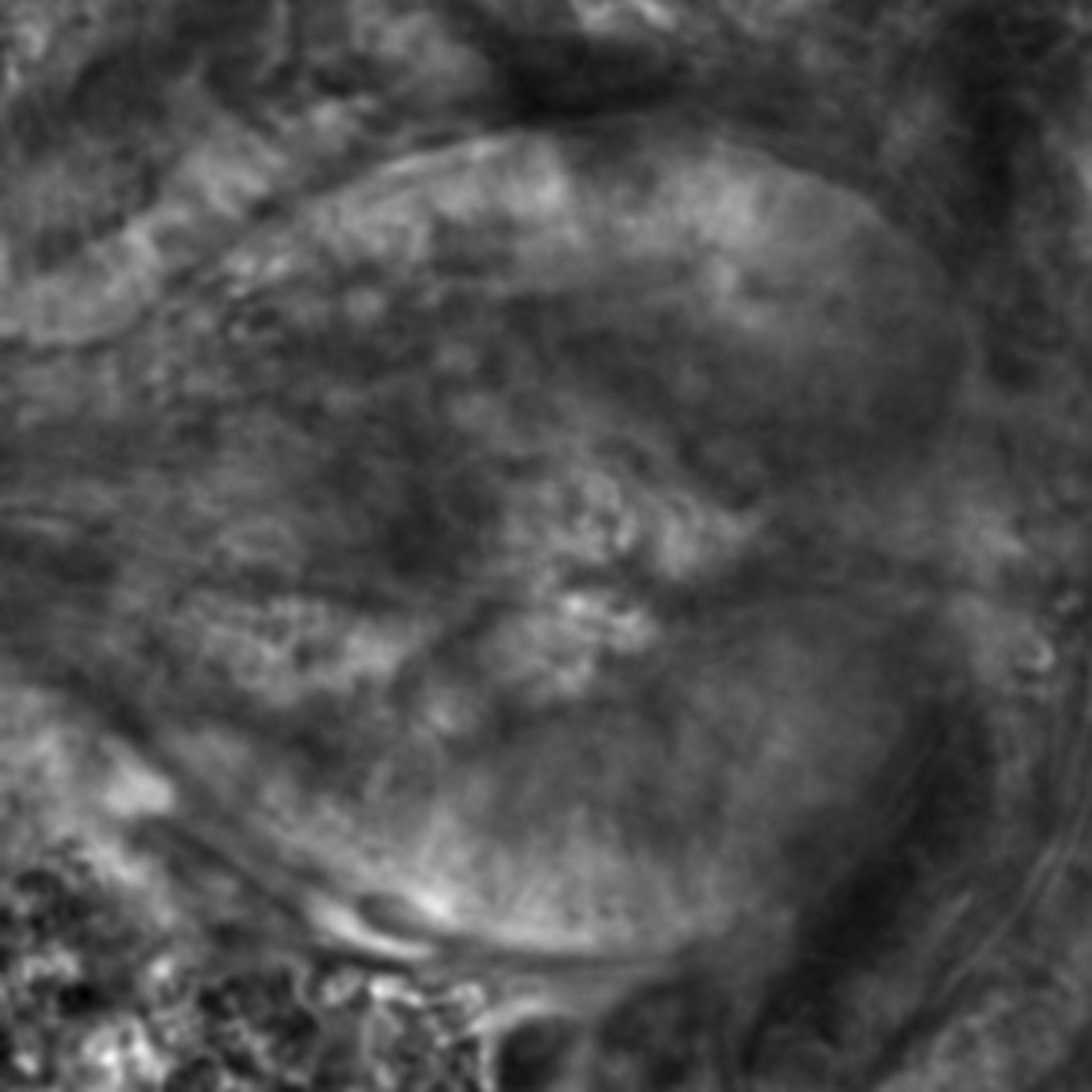 Caenorhabditis elegans - CIL:2565