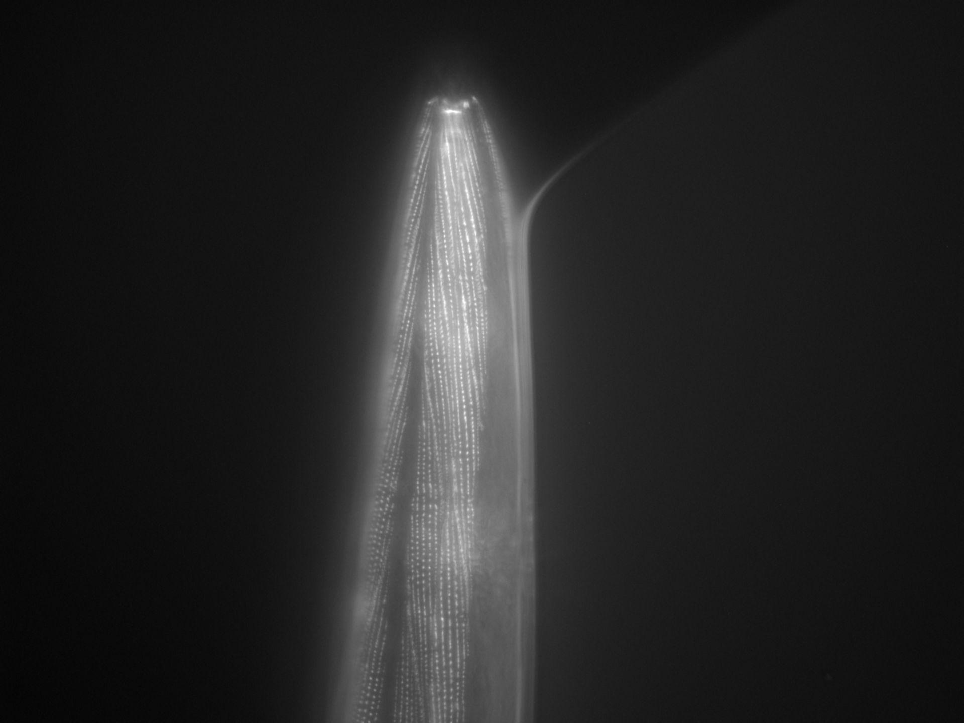Caenorhabditis elegans (Actin filament) - CIL:1029