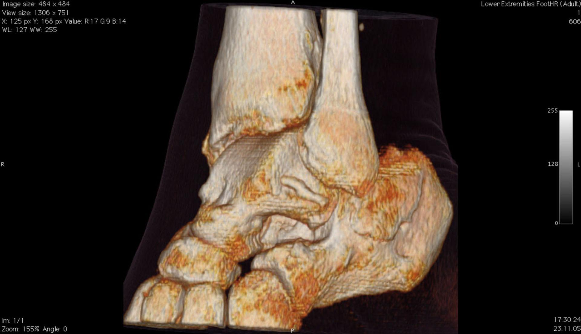 Risonanza della caviglia