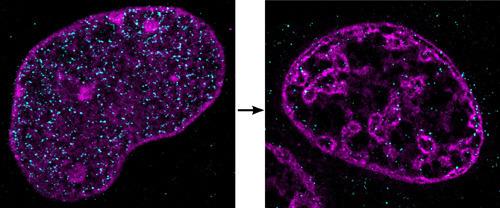 Dramatische Effekte der Ischämie. Die Bilder zeigen DNA in einem Zellkern unter normalen (links) und ischämischen (recht) Bedingungen. Die am IMB entwickelte neue Technik für superauflösende Mikroskopie zeigt, dass sich die DNA zu ungewöhnlichen, engen Haufen verdichtet, wenn die Zellen nicht mit Sauerstoff und Nährstoffen versorgt sind. © A. Szczurek & I. Kirmes