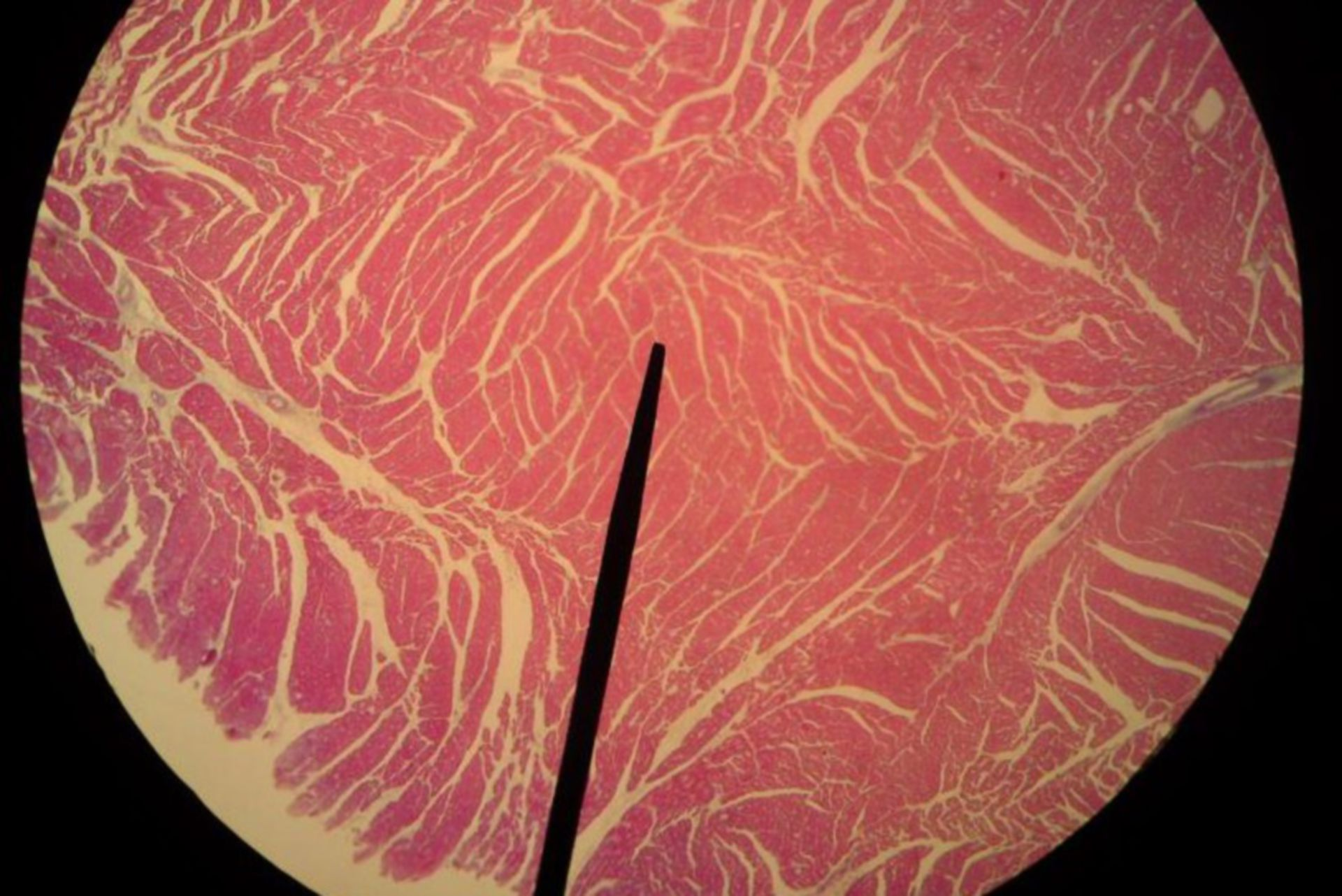 Heart muscle pig