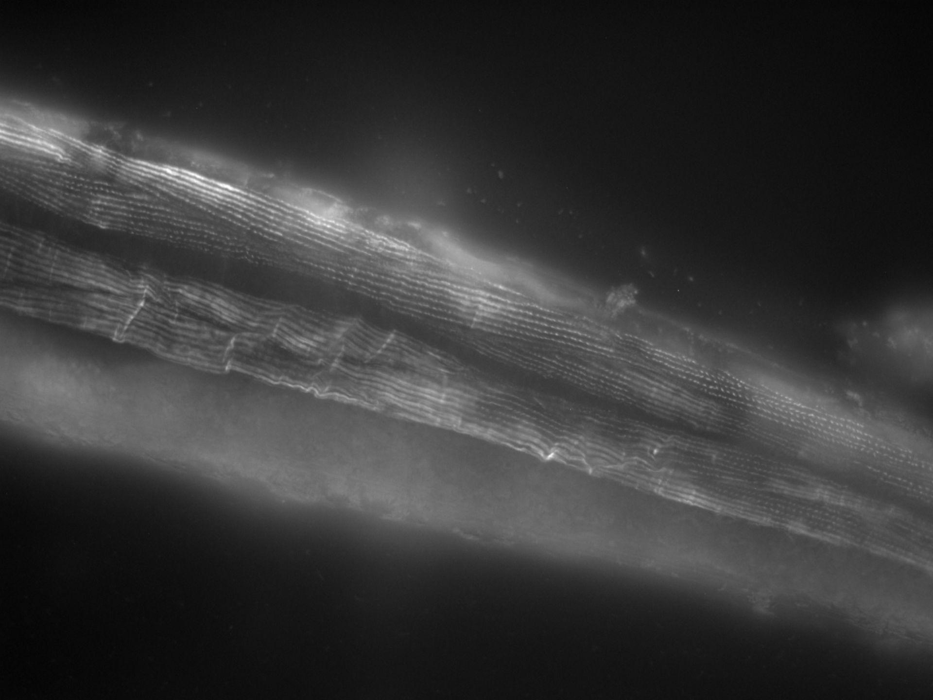 Caenorhabditis elegans (Actin filament) - CIL:1107