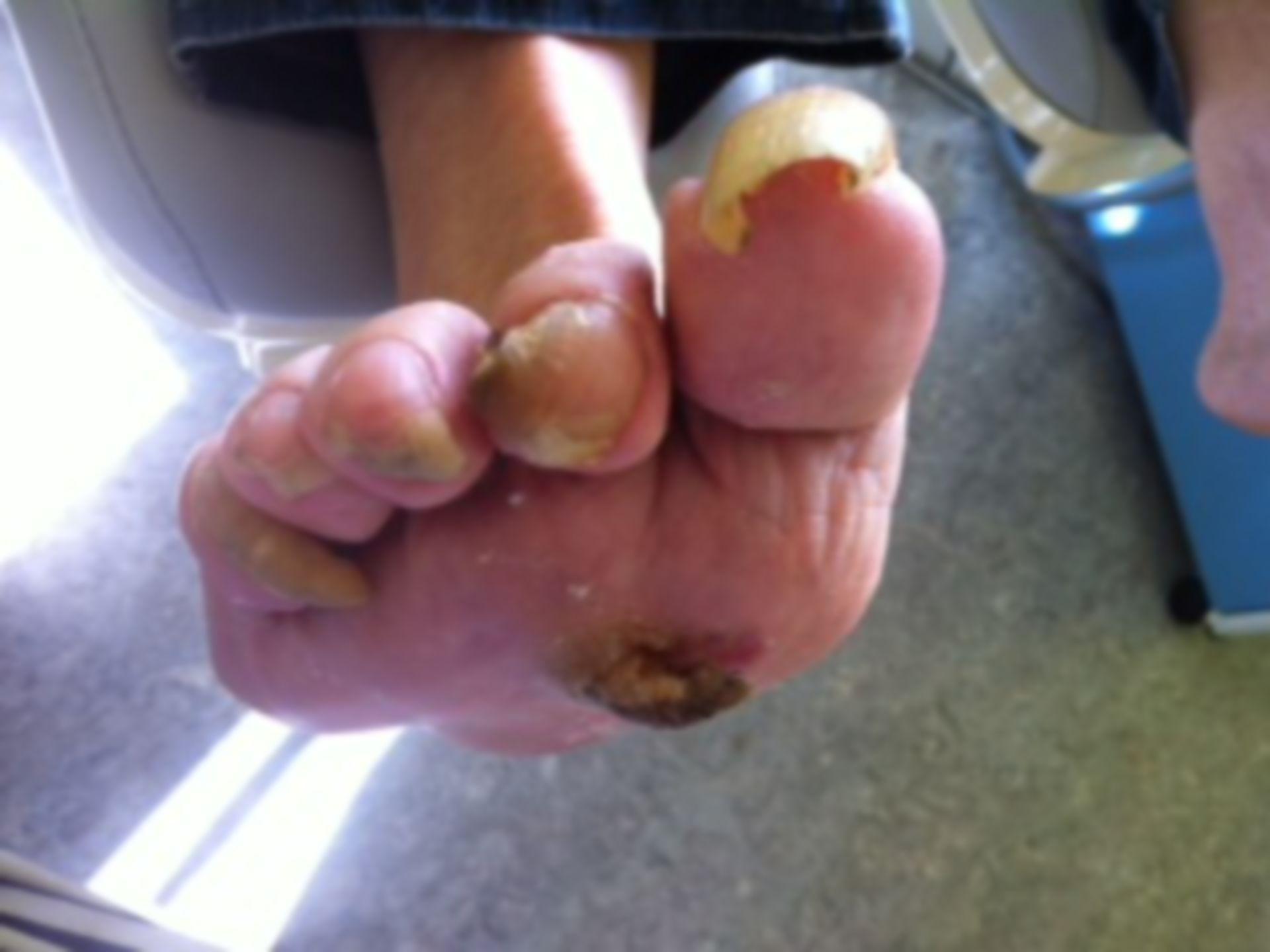 Foot of a diabetes mellitus patient
