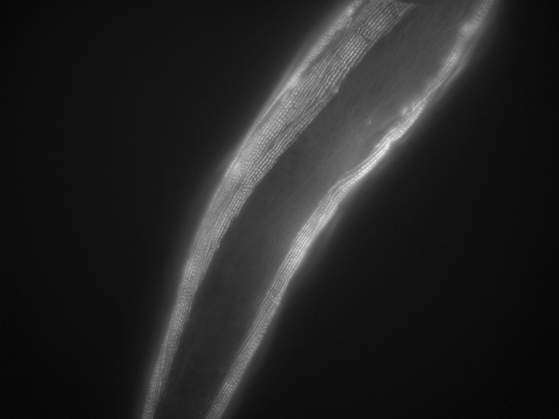 Caenorhabditis elegans (Actin filament) - CIL:1020