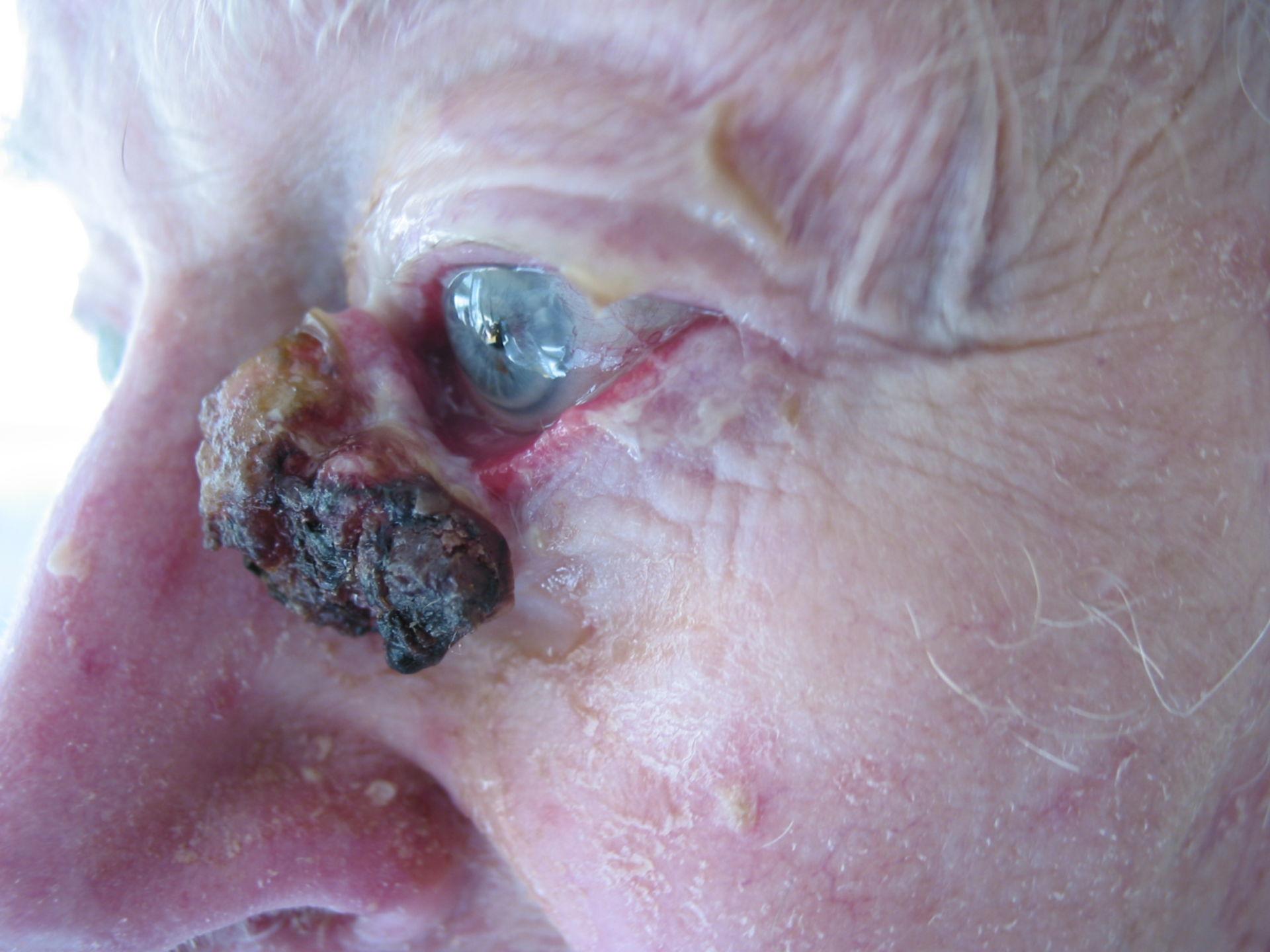 Tumor del párpado inferior