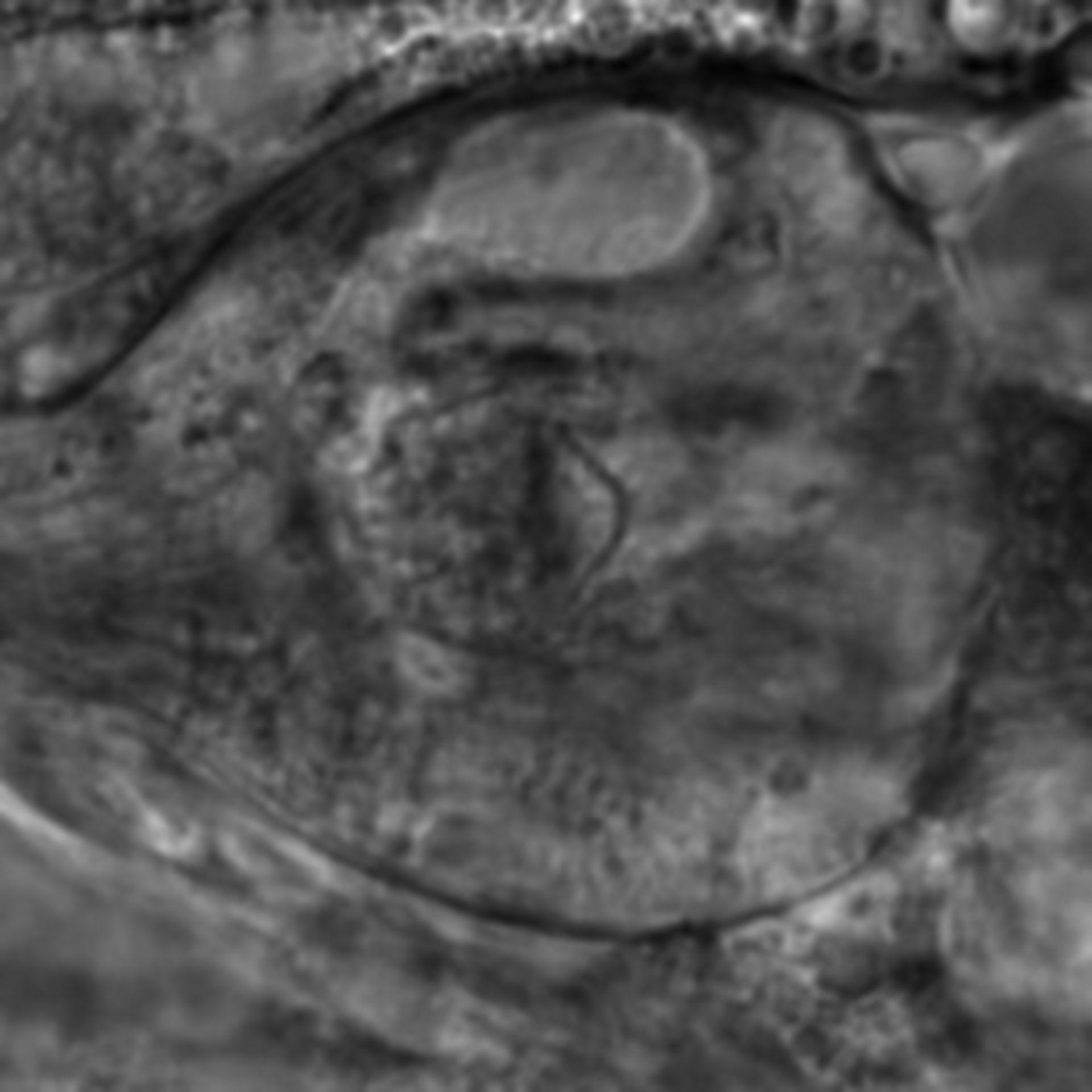 Caenorhabditis elegans - CIL:2799