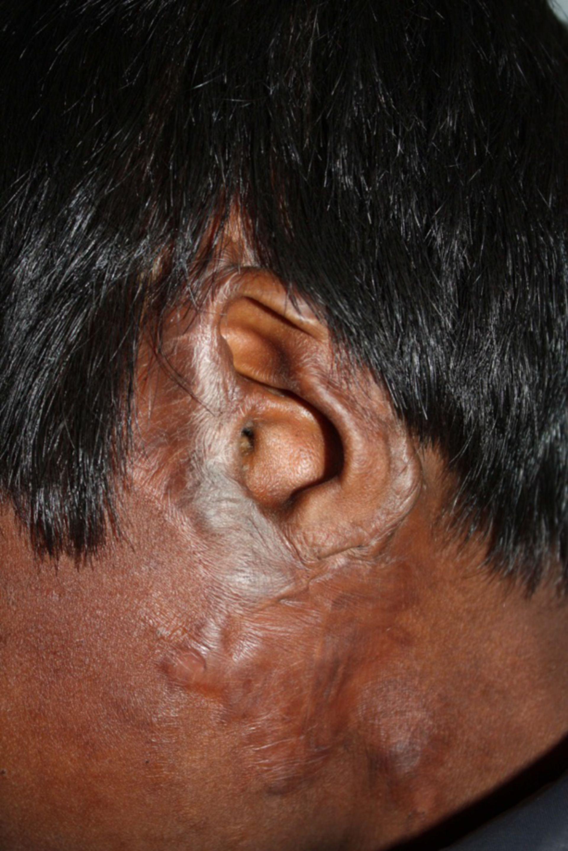 Verbrennungsnarben Ohr