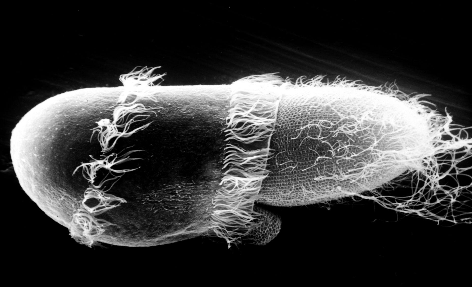 Paramecium sp. (superficie cellulare) - CIL:39249