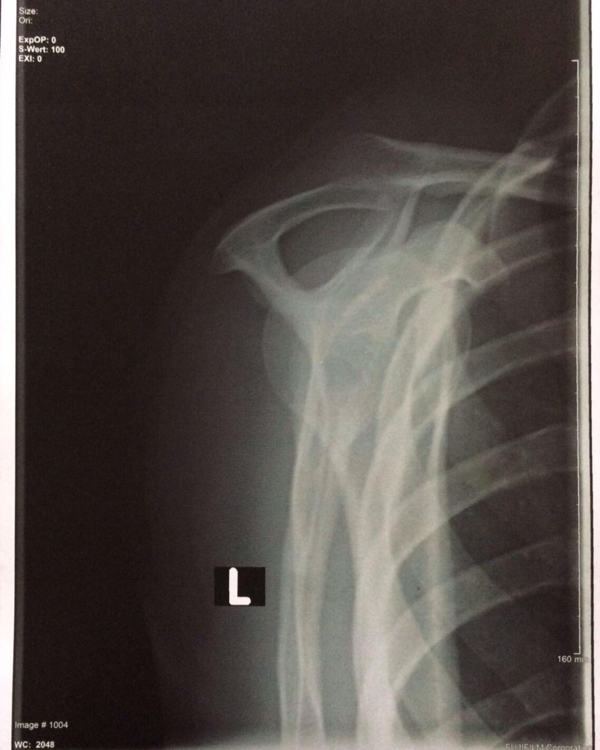 Röntgenbild Schulter