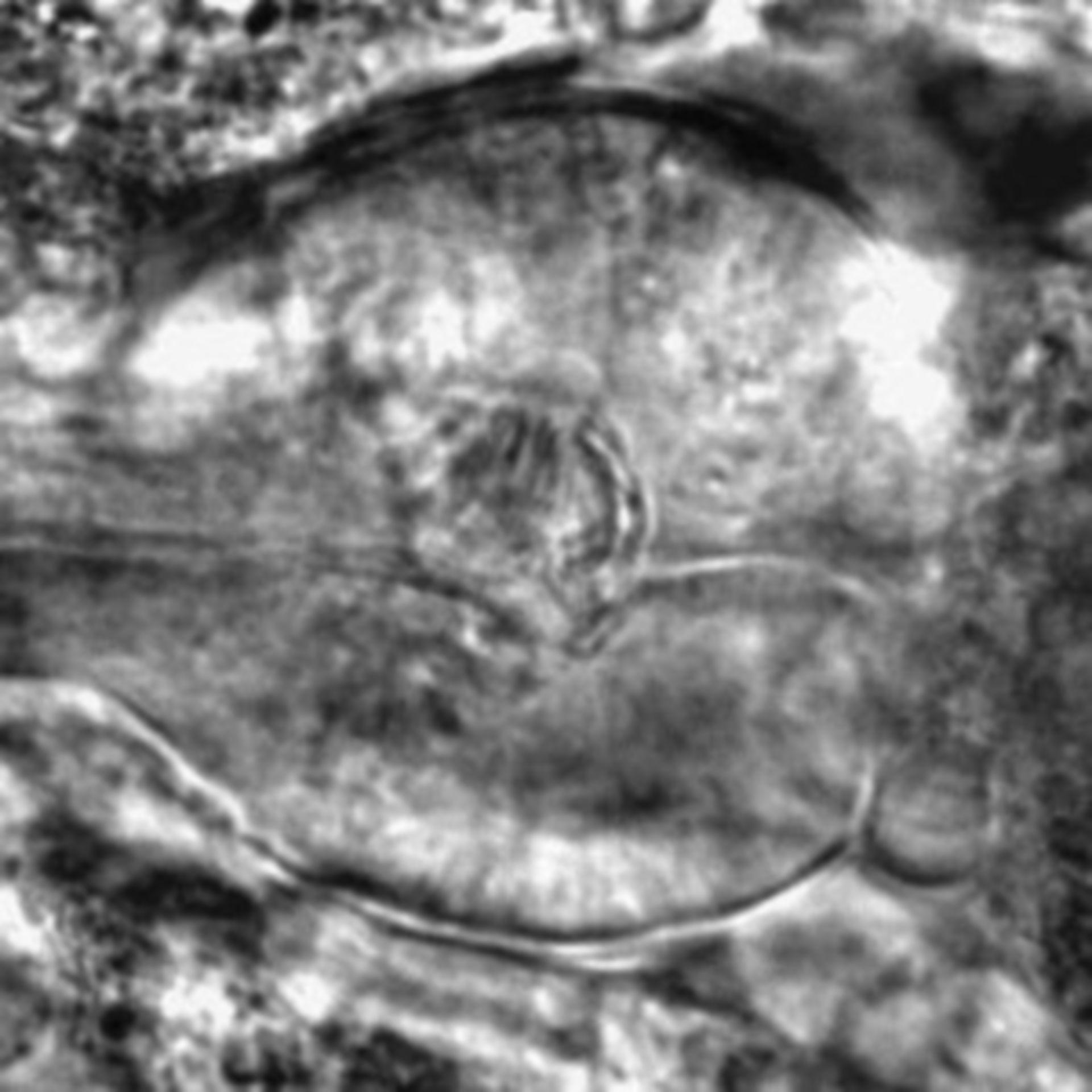Caenorhabditis elegans - CIL:2238