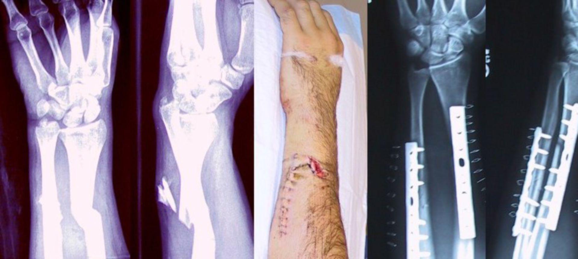Frattura del braccio