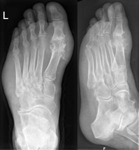 Gicht im Röntgenbild des Fußes. Typische (Haupt-)Lokalisation am Großzehengrundgelenk. Auffallend auch die Weichteilschwellung in der Umgebung des Gelenkes. Credit: Hellerhoff, CC BY-SA 3.0.
